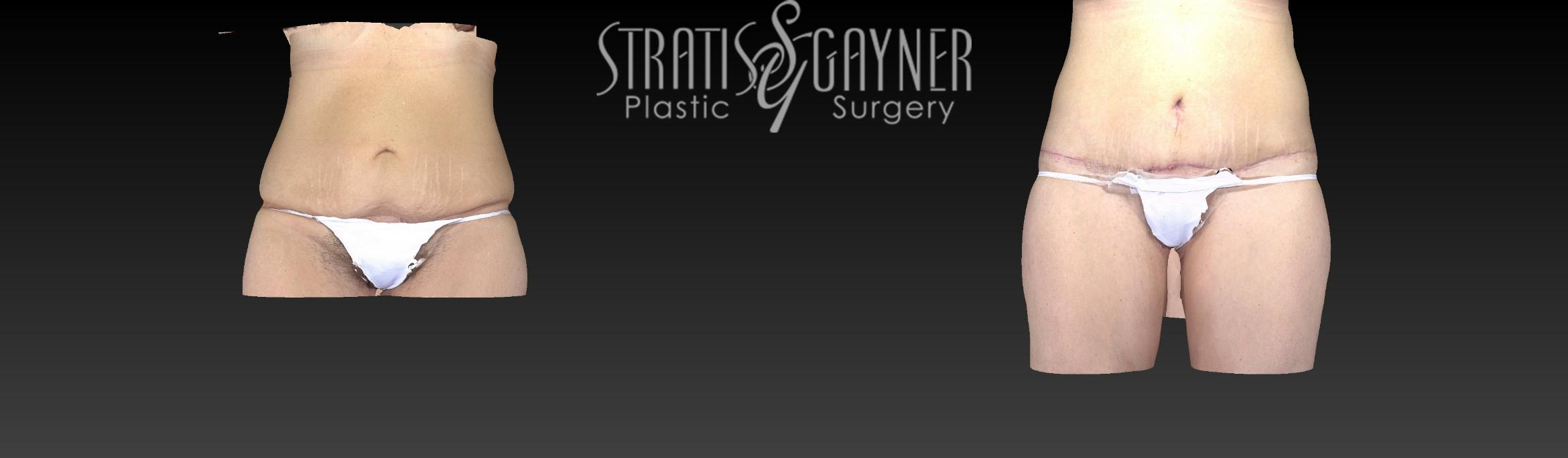 Body Lift Case 159 Before & After View #1 | Harrisburg, PA | Stratis Gayner Plastic Surgery