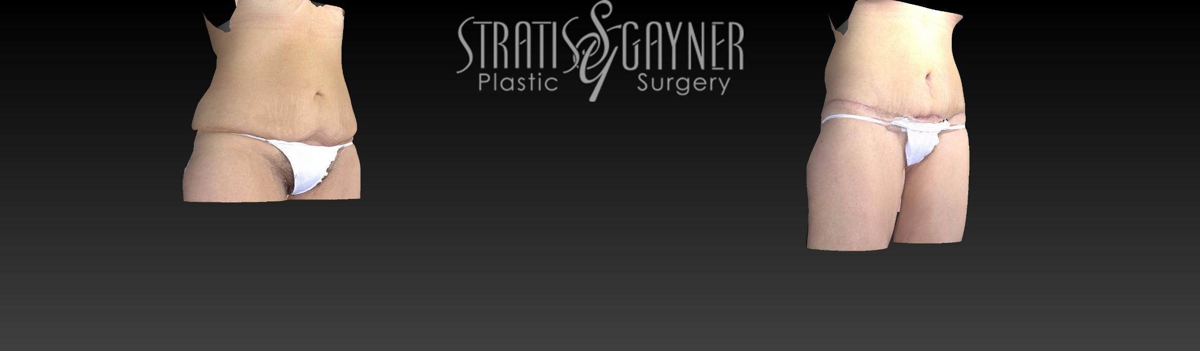 Body Lift Case 159 Before & After View #2 | Harrisburg, PA | Stratis Gayner Plastic Surgery