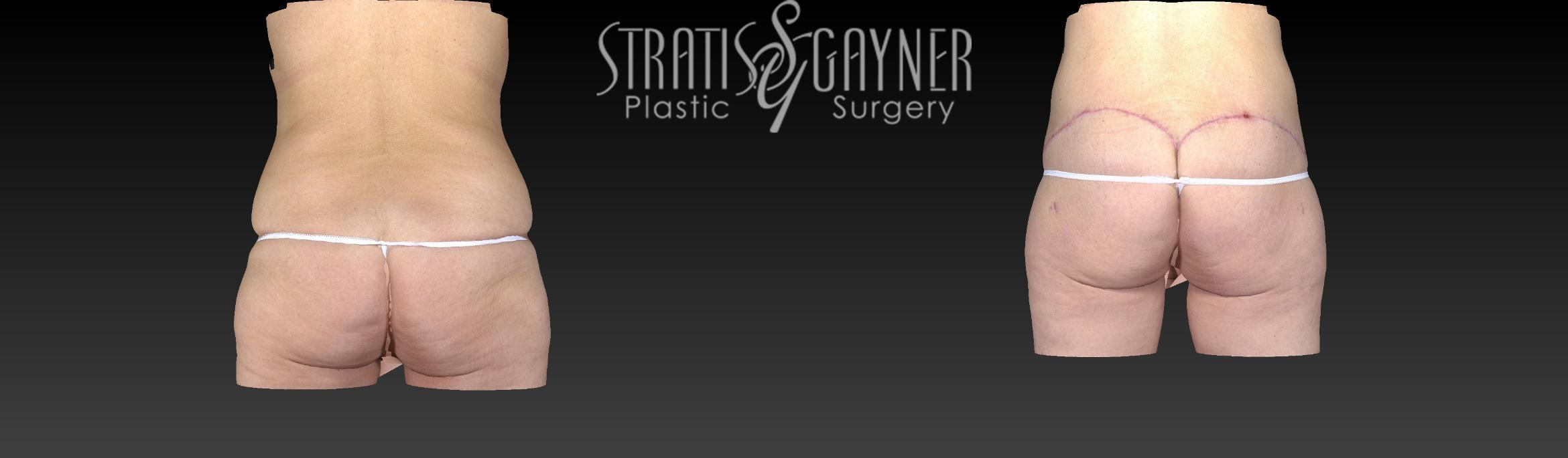 Body Lift Case 159 Before & After View #3 | Harrisburg, PA | Stratis Gayner Plastic Surgery