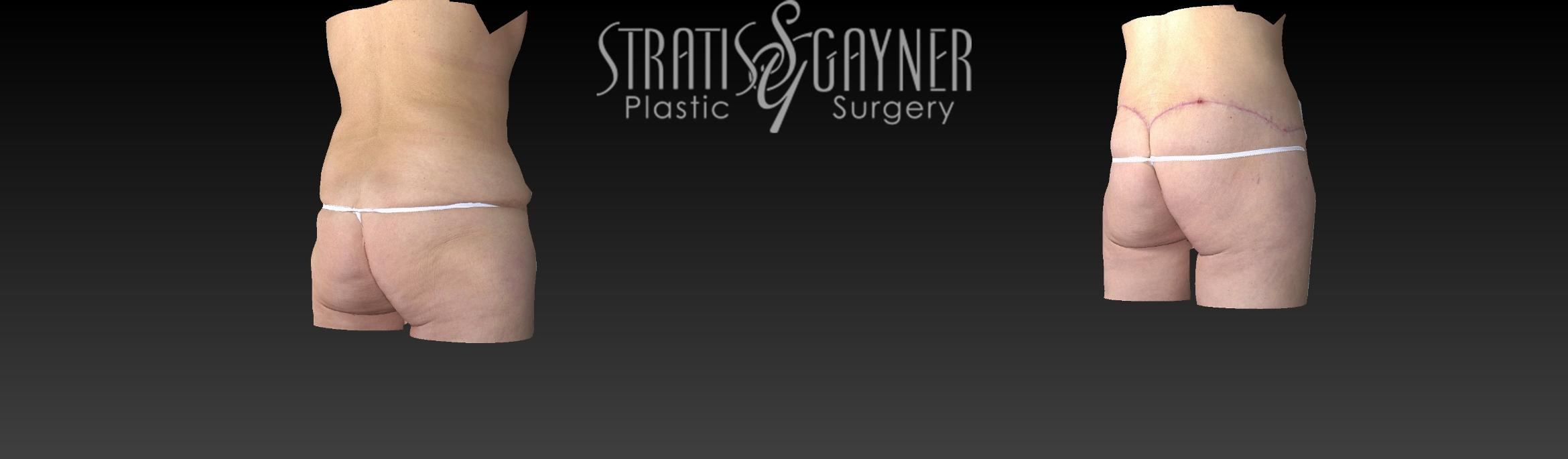 Body Lift Case 159 Before & After View #4 | Harrisburg, PA | Stratis Gayner Plastic Surgery