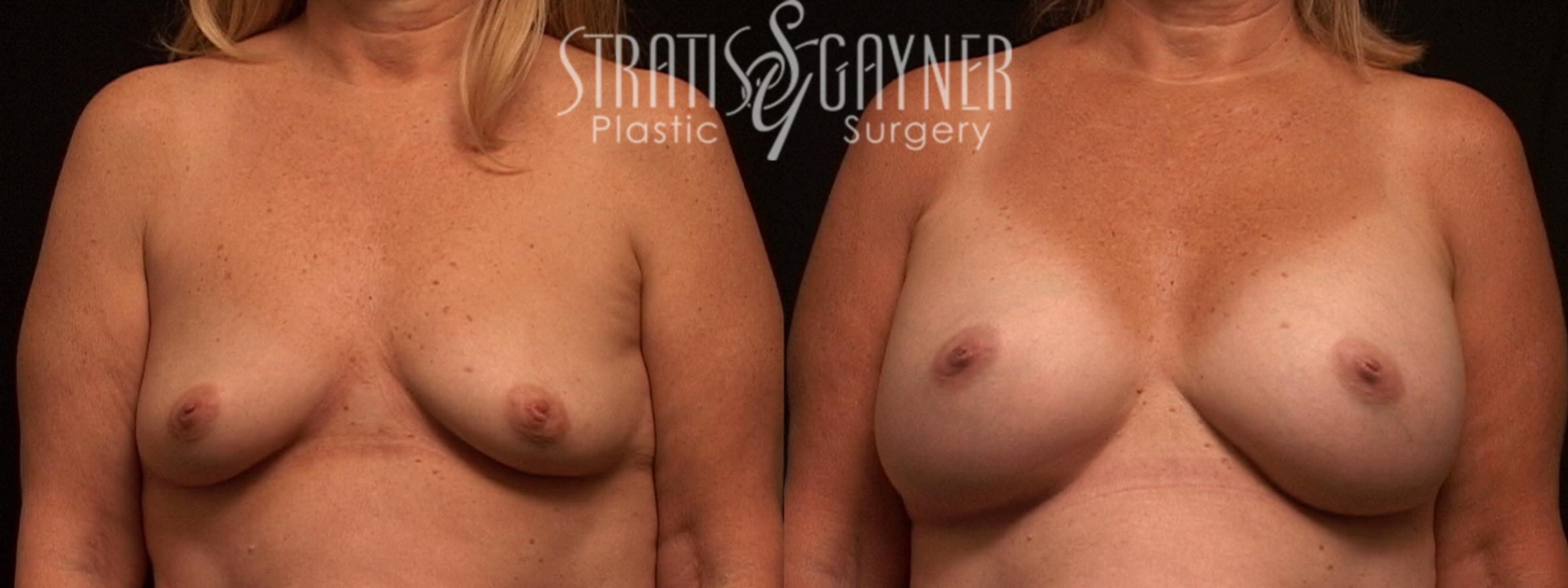 Breast Augmentation Case 80 Before & After View #1 | Harrisburg, PA | Stratis Gayner Plastic Surgery