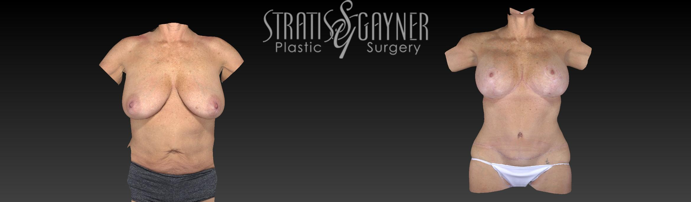 Breast Lift Case 193 Before & After View #1 | Harrisburg, PA | Stratis Gayner Plastic Surgery