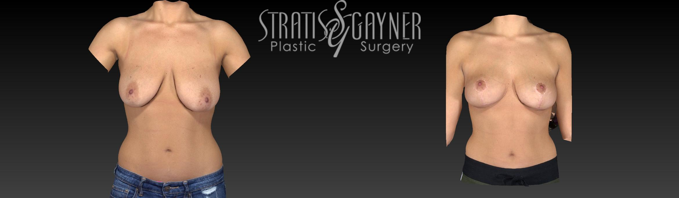 Breast Lift Case 57 Before & After View #1 | Harrisburg, PA | Stratis Gayner Plastic Surgery