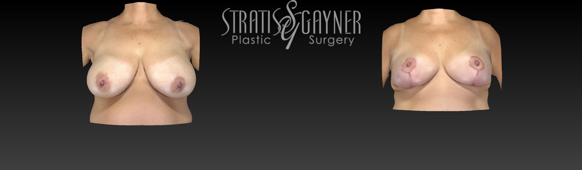 Breast Reduction Case 18 Before & After View #1 | Harrisburg, PA | Stratis Gayner Plastic Surgery