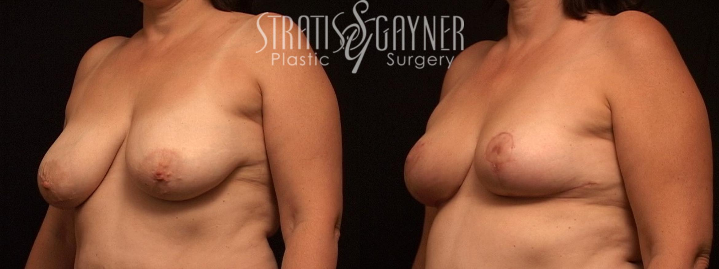 Breast Reduction Case 21 Before & After View #1 | Harrisburg, PA | Stratis Gayner Plastic Surgery