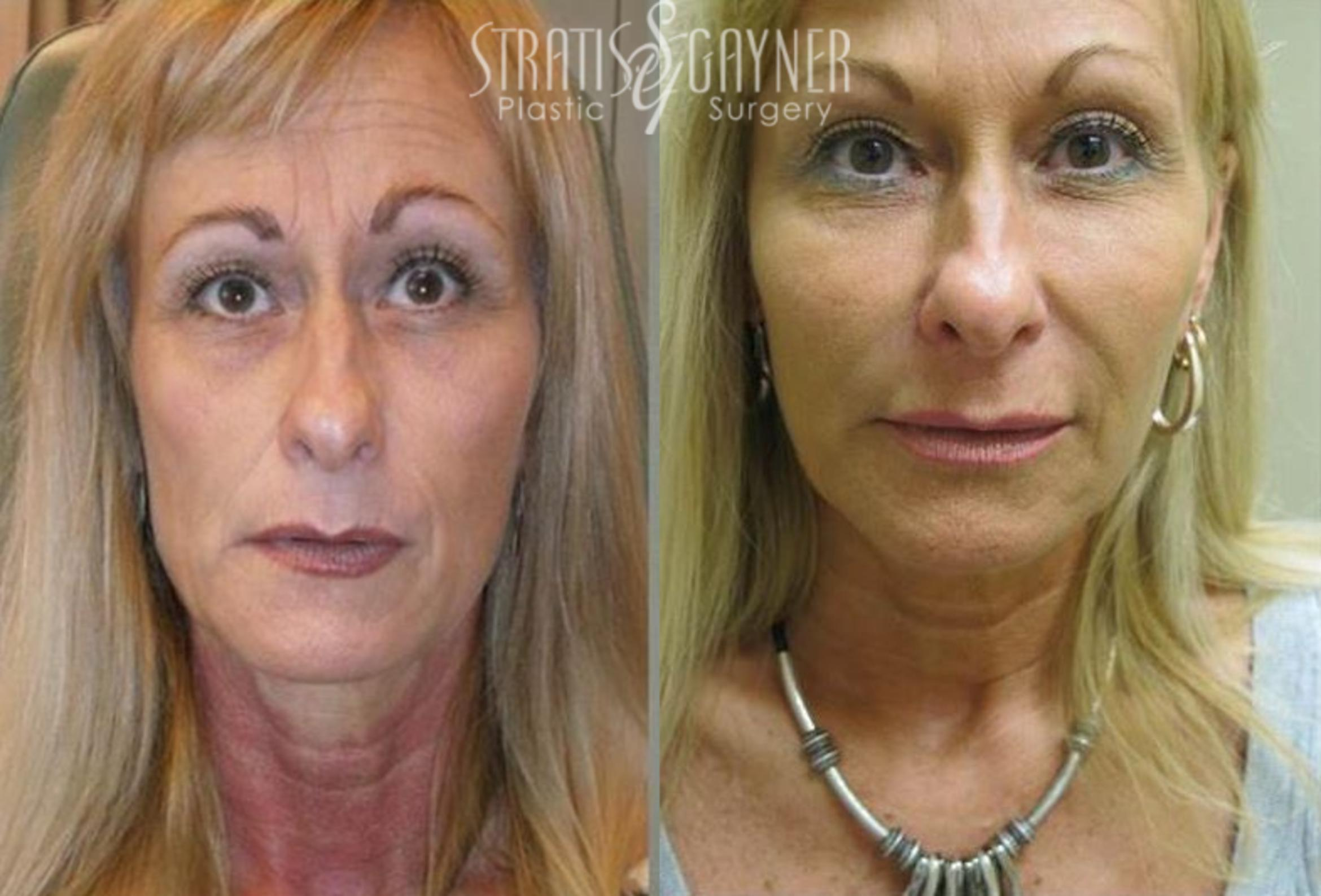 Dermal Fillers Case 186 Before & After View #1 | Harrisburg, PA | Stratis Gayner Plastic Surgery