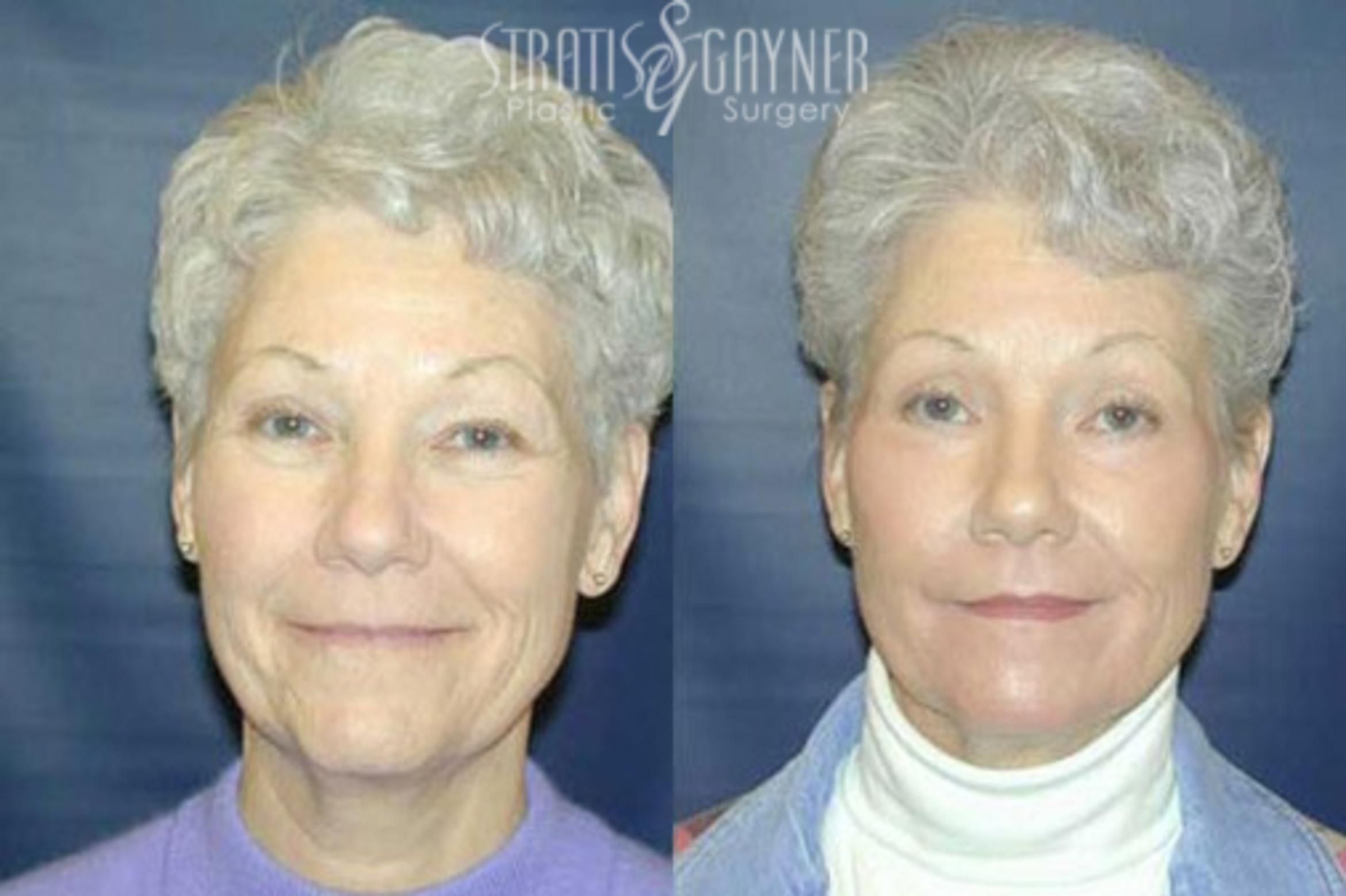 Eyelid Surgery Case 212 Before & After Front | Harrisburg, PA | Stratis Gayner Plastic Surgery