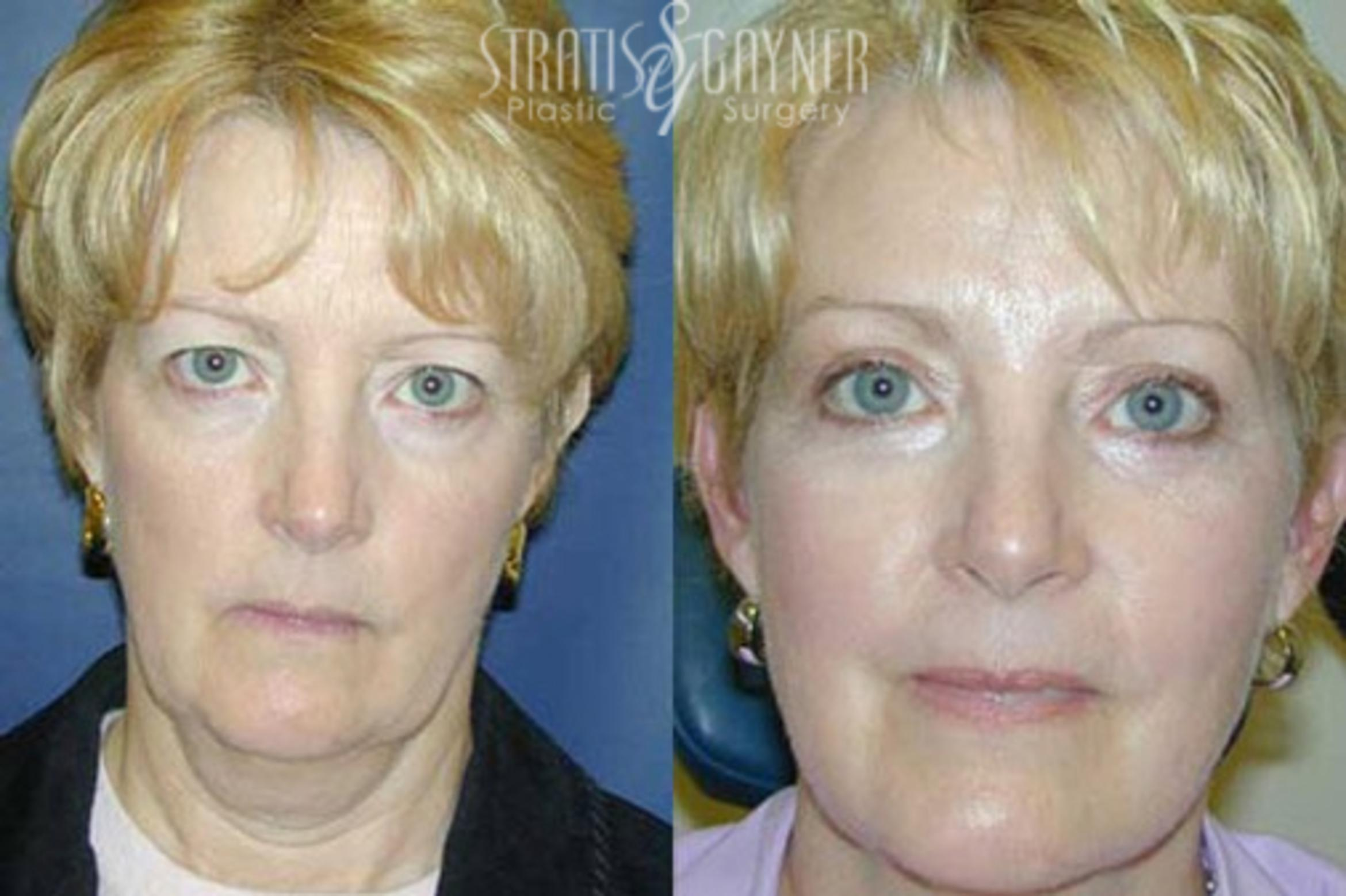 Eyelid Surgery Case 213 Before & After Front | Harrisburg, PA | Stratis Gayner Plastic Surgery