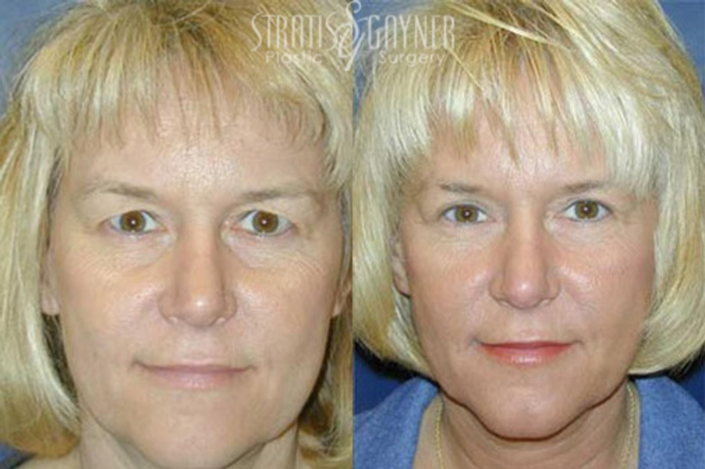 Eyelid Surgery Case 215 Before & After Front | Harrisburg, PA | Stratis Gayner Plastic Surgery