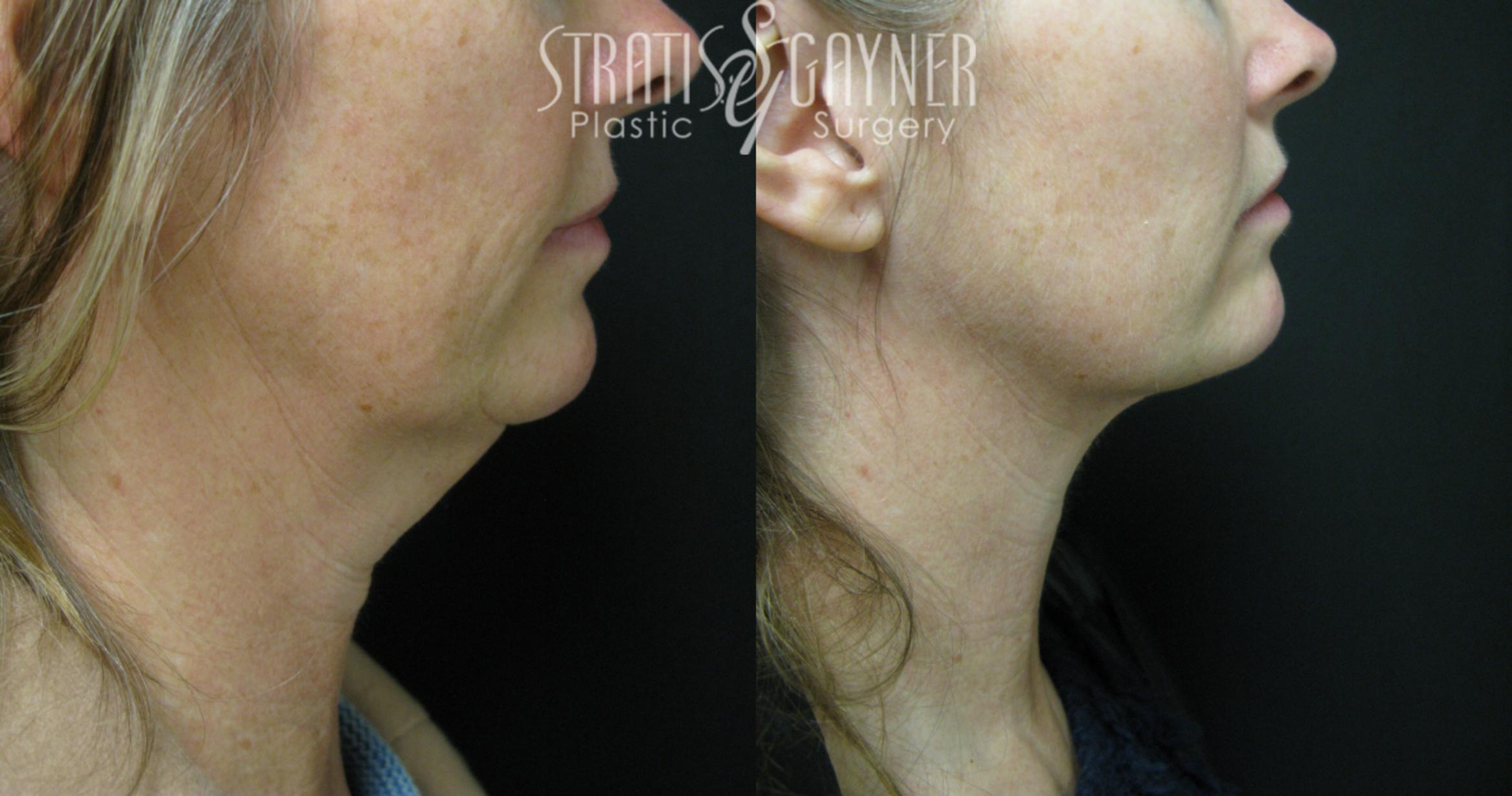 Facial Liposuction Case 34 Before & After View #1 | Harrisburg, PA | Stratis Gayner Plastic Surgery