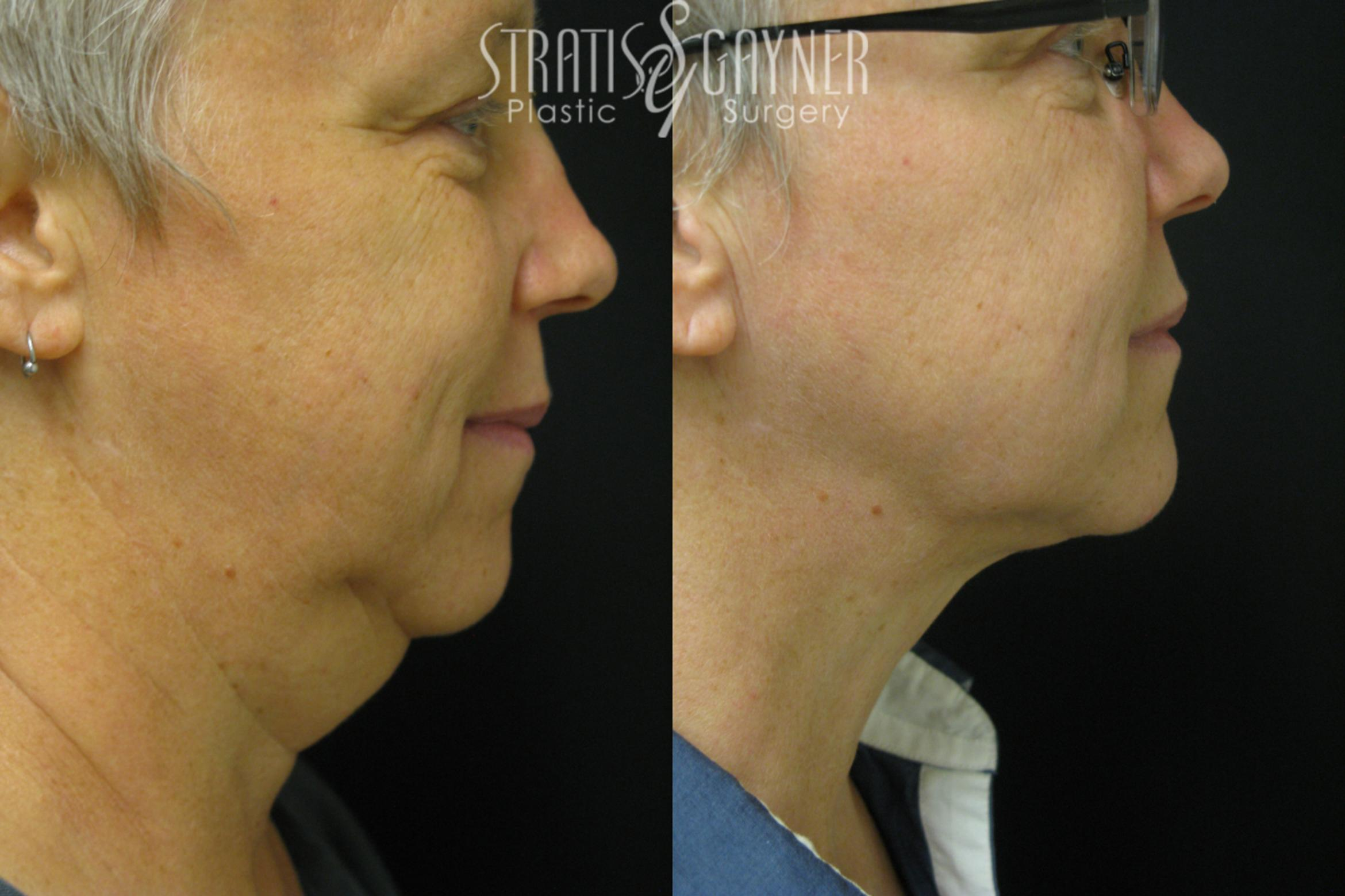 Facial Liposuction Case 35 Before & After View #1 | Harrisburg, PA | Stratis Gayner Plastic Surgery