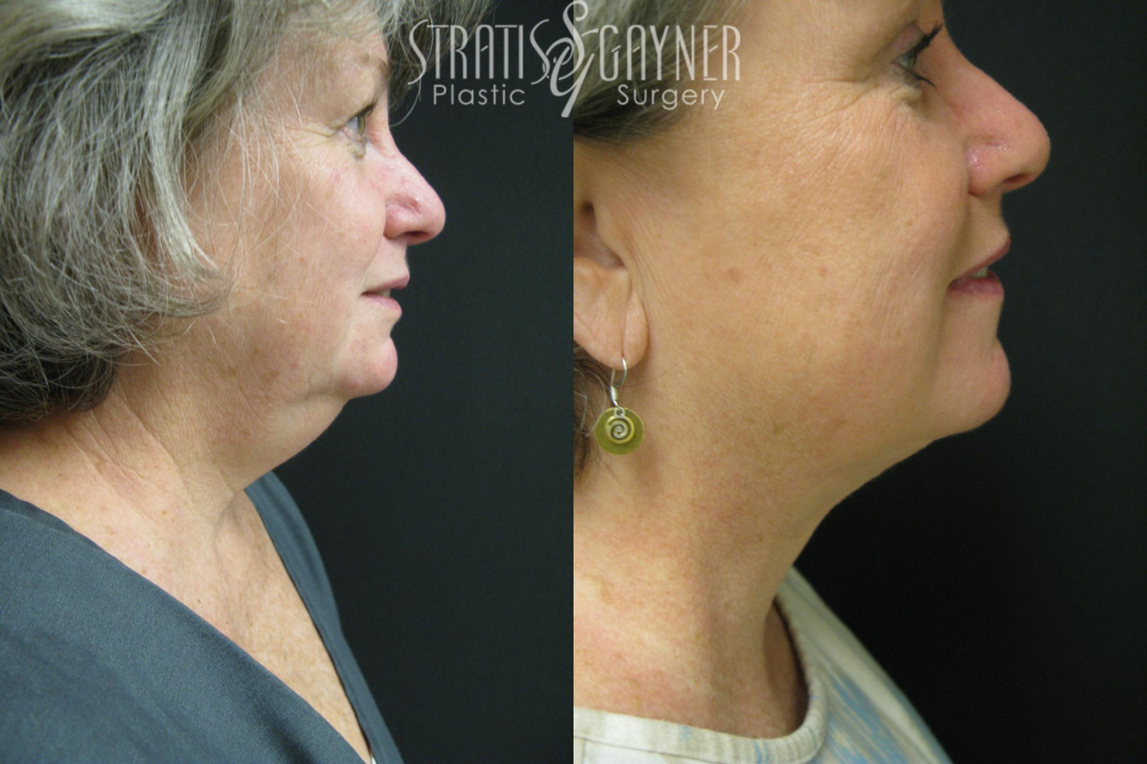 Facial Liposuction Case 36 Before & After View #1 | Harrisburg, PA | Stratis Gayner Plastic Surgery