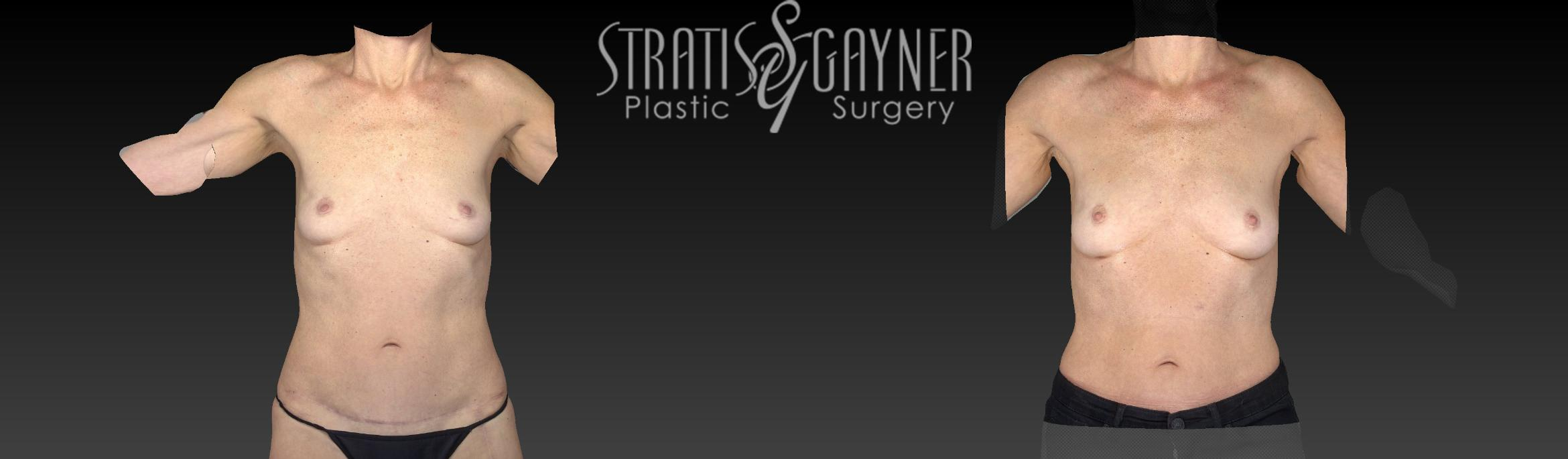 Fat Transfer to Breast Case 169 Before & After View #1 | Harrisburg, PA | Stratis Gayner Plastic Surgery