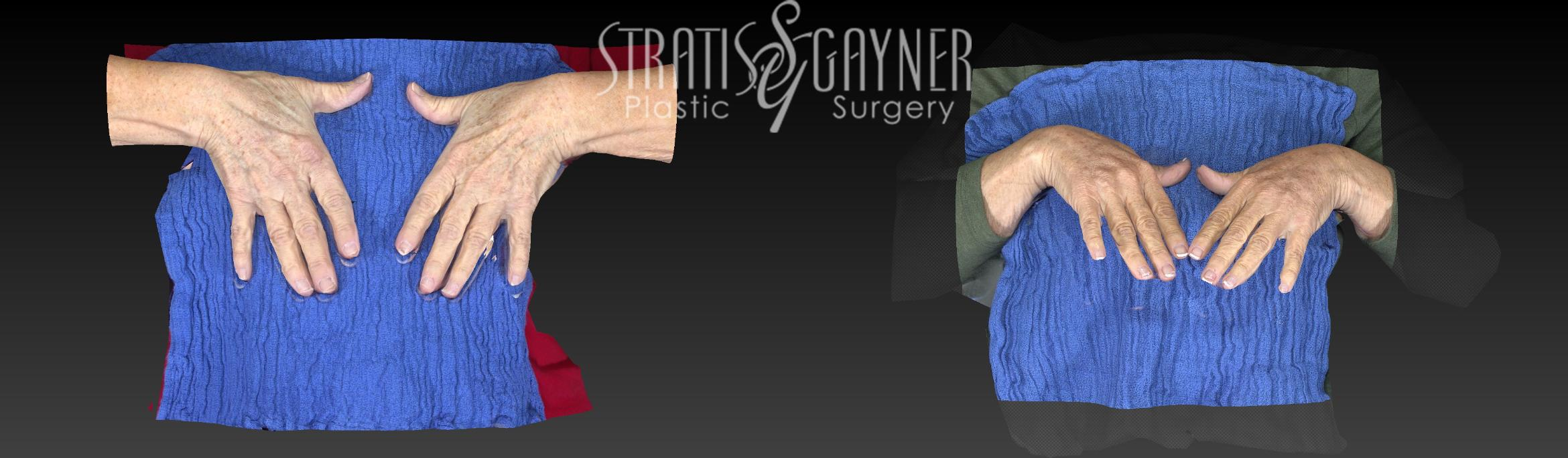 Fat Transfer to Hands Case 172 Before & After View #1 | Harrisburg, PA | Stratis Gayner Plastic Surgery