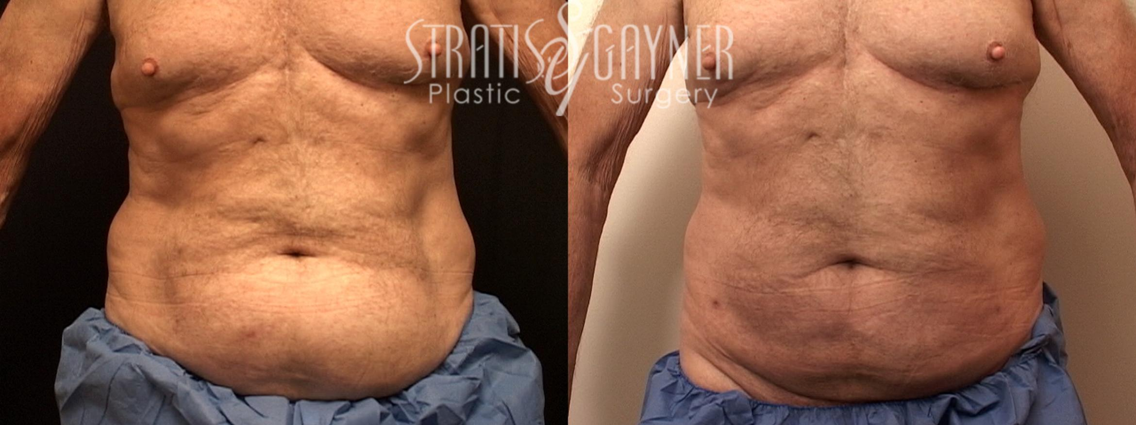 Liposuction Case 127 Before & After View #1 | Harrisburg, PA | Stratis Gayner Plastic Surgery
