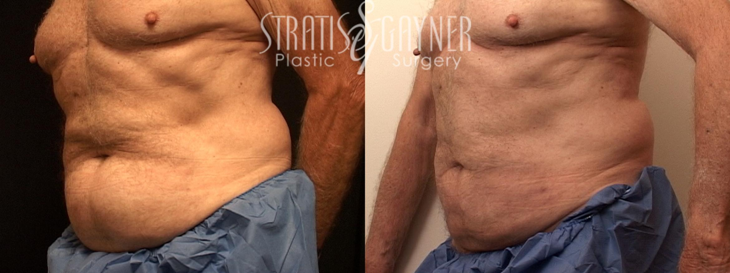 Liposuction Case 127 Before & After View #2 | Harrisburg, PA | Stratis Gayner Plastic Surgery