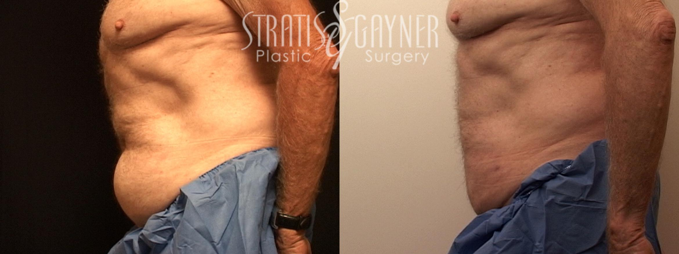 Liposuction Case 127 Before & After View #3 | Harrisburg, PA | Stratis Gayner Plastic Surgery