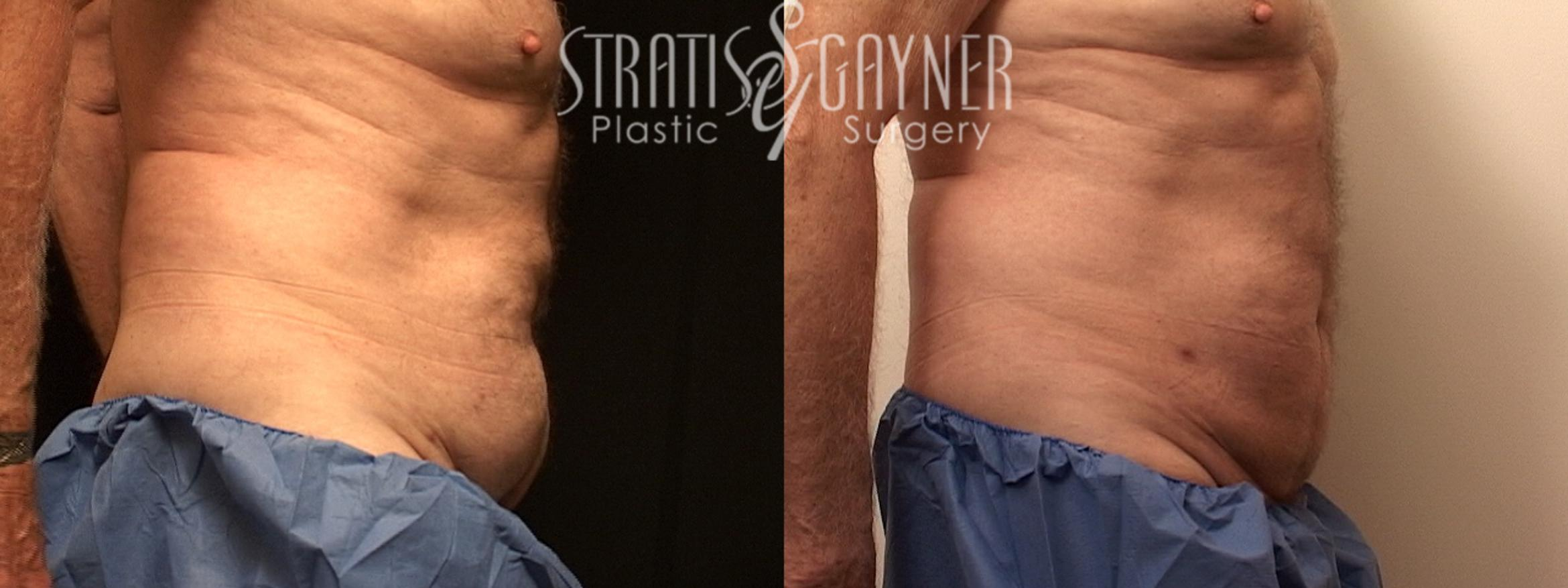 Liposuction Case 127 Before & After View #4 | Harrisburg, PA | Stratis Gayner Plastic Surgery