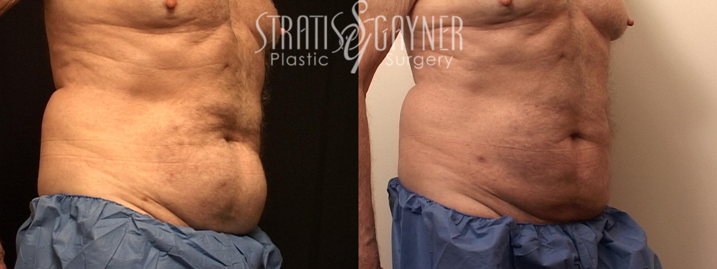 Liposuction Case 127 Before & After View #5 | Harrisburg, PA | Stratis Gayner Plastic Surgery