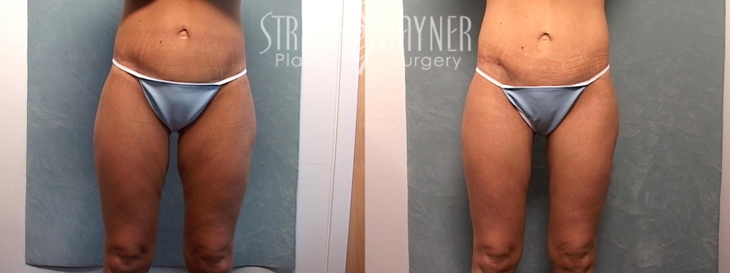 Liposuction Case 133 Before & After View #1 | Harrisburg, PA | Stratis Gayner Plastic Surgery