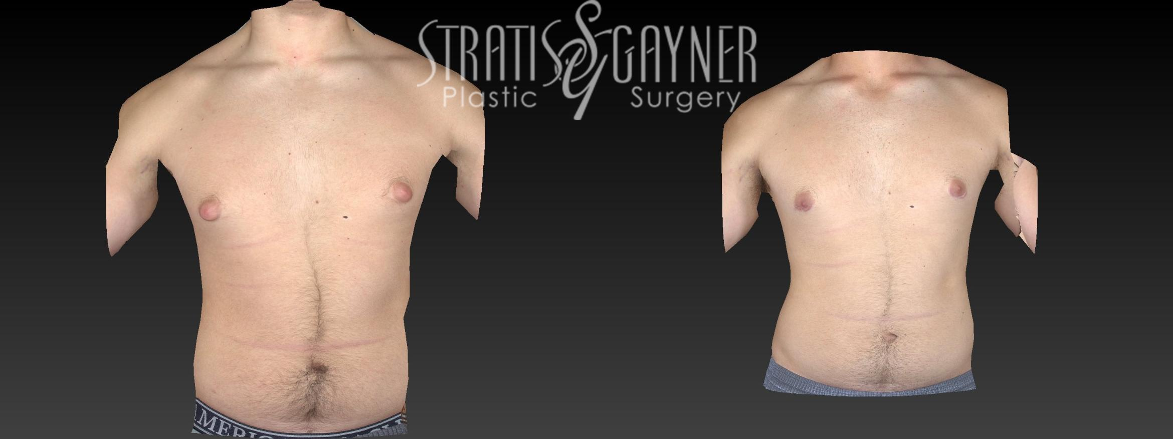 Male Breast Reduction Case 46 Before & After View #1 | Harrisburg, PA | Stratis Gayner Plastic Surgery