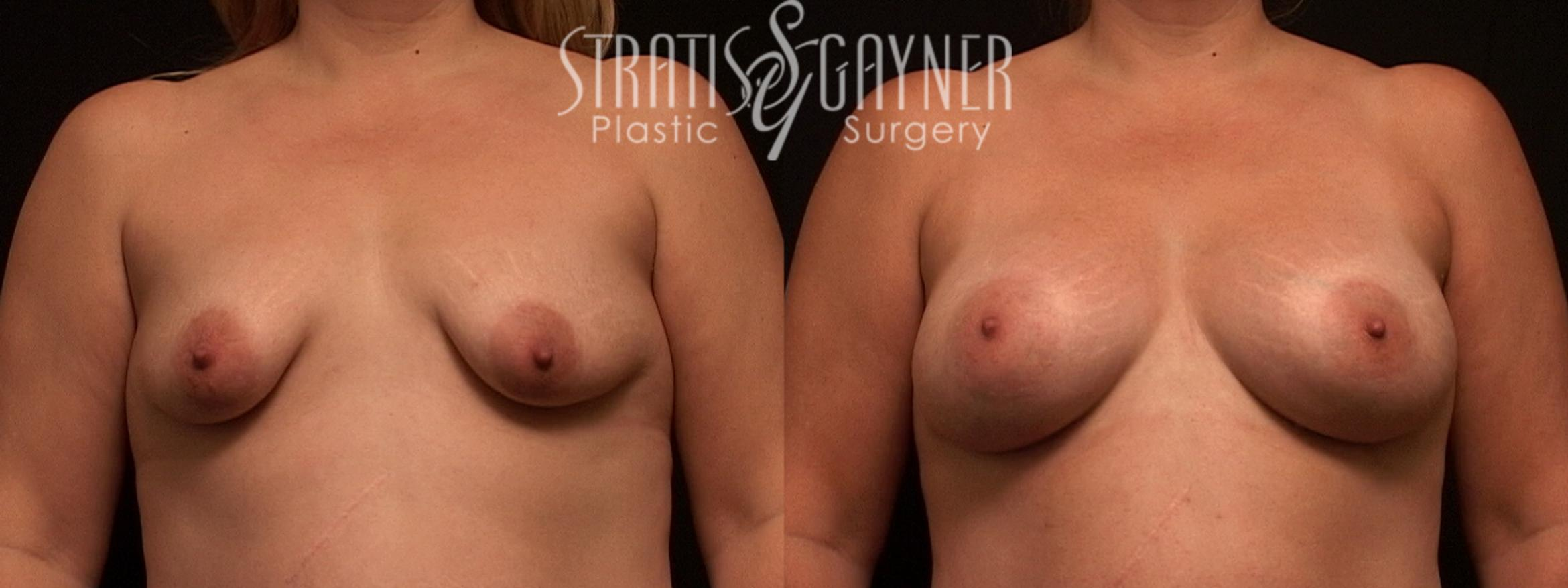 Mommy Makeover Case 48 Before & After View #1 | Harrisburg, PA | Stratis Gayner Plastic Surgery