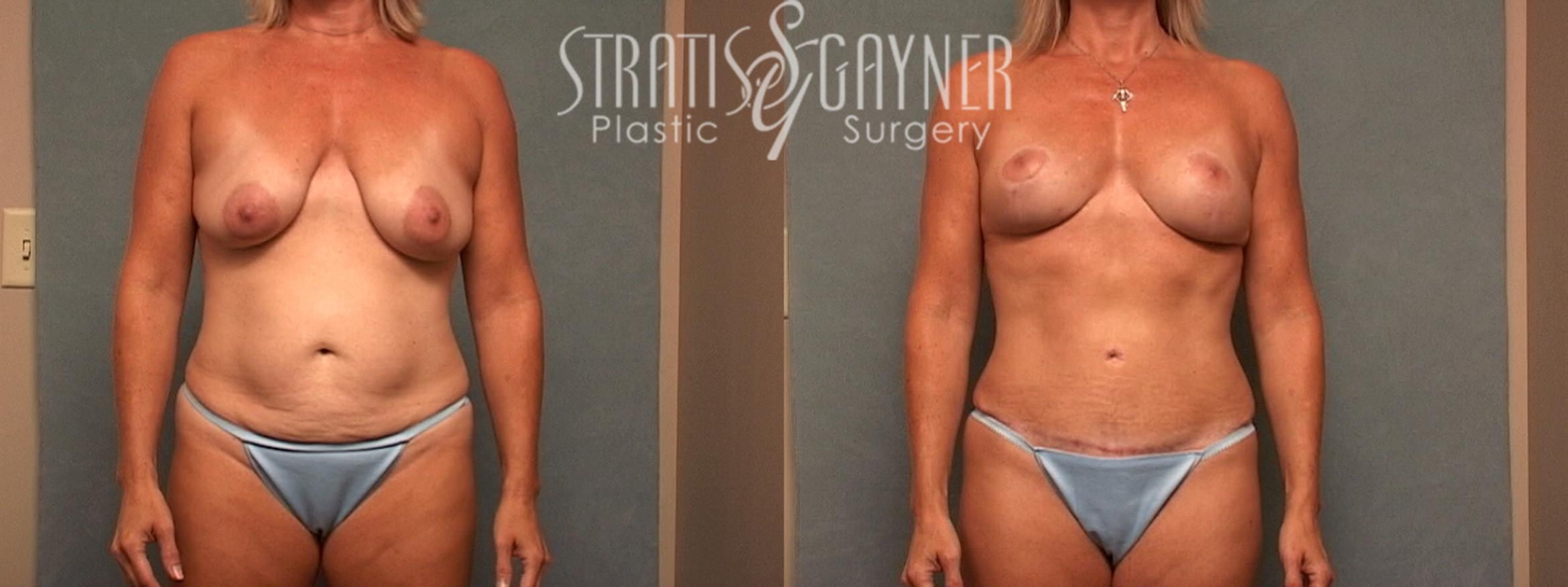 Mommy Makeover Case 49 Before & After View #1 | Harrisburg, PA | Stratis Gayner Plastic Surgery
