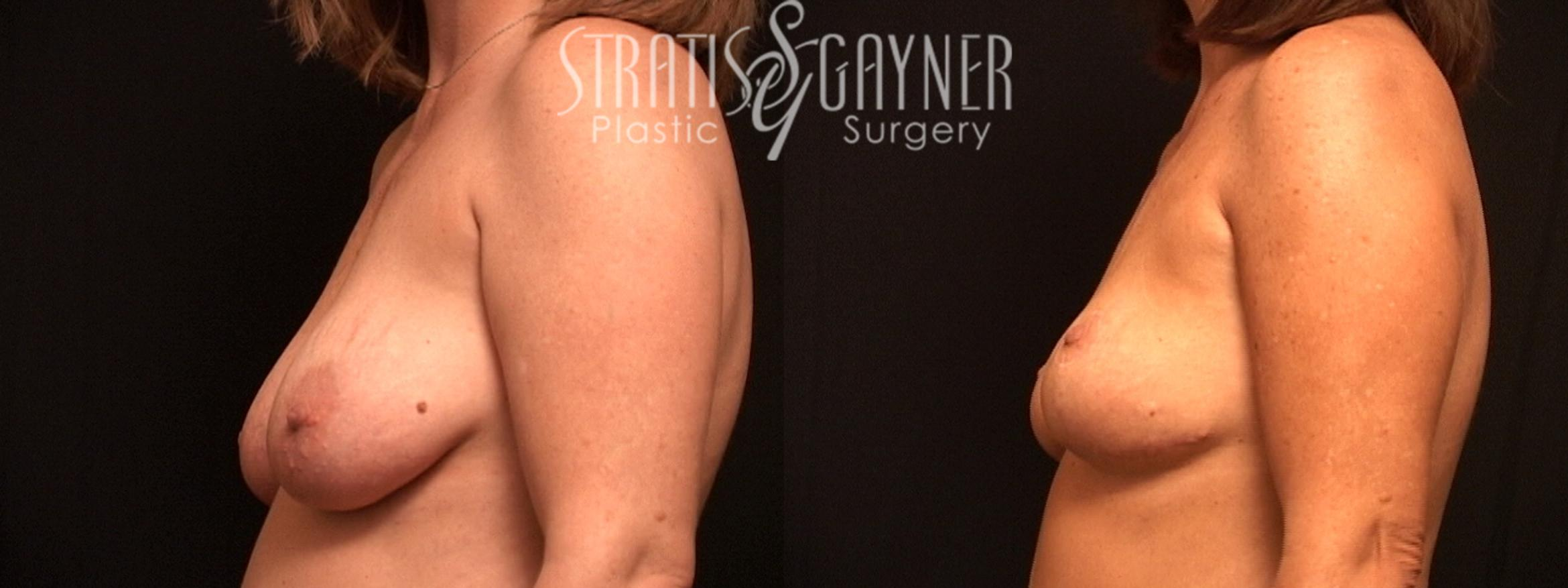 Mommy Makeover Case 55 Before & After View #3 | Harrisburg, PA | Stratis Gayner Plastic Surgery