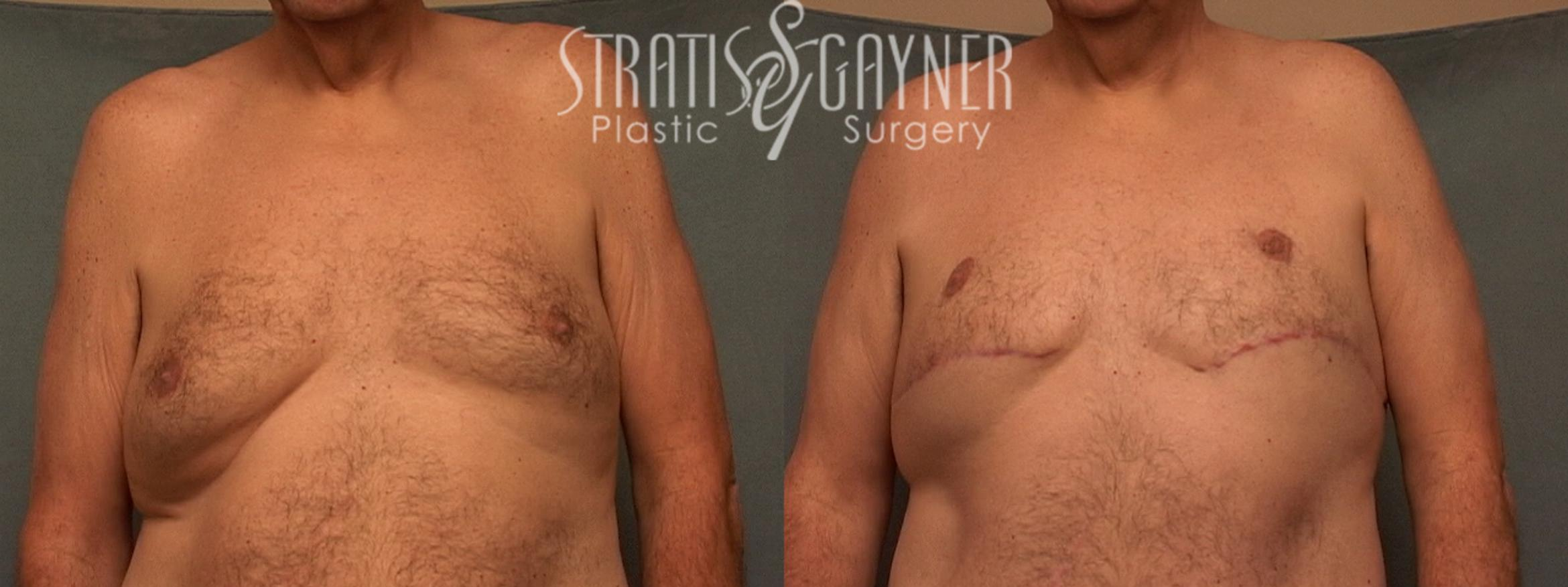 Procedures for Men Case 59 Before & After View #1 | Harrisburg, PA | Stratis Gayner Plastic Surgery