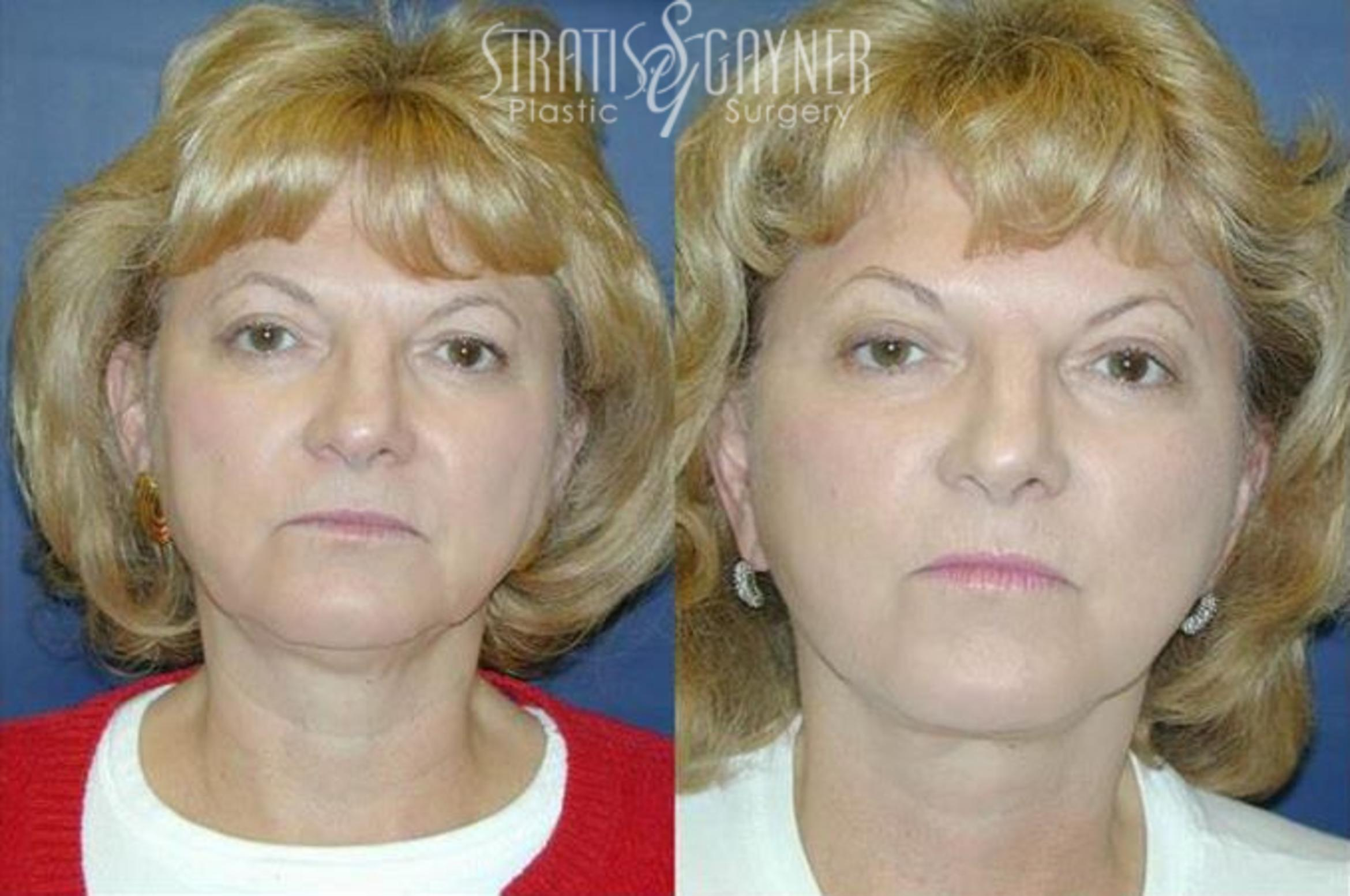 Quick Recovery Facelift Case 198 Before & After View #1 | Harrisburg, PA | Stratis Gayner Plastic Surgery