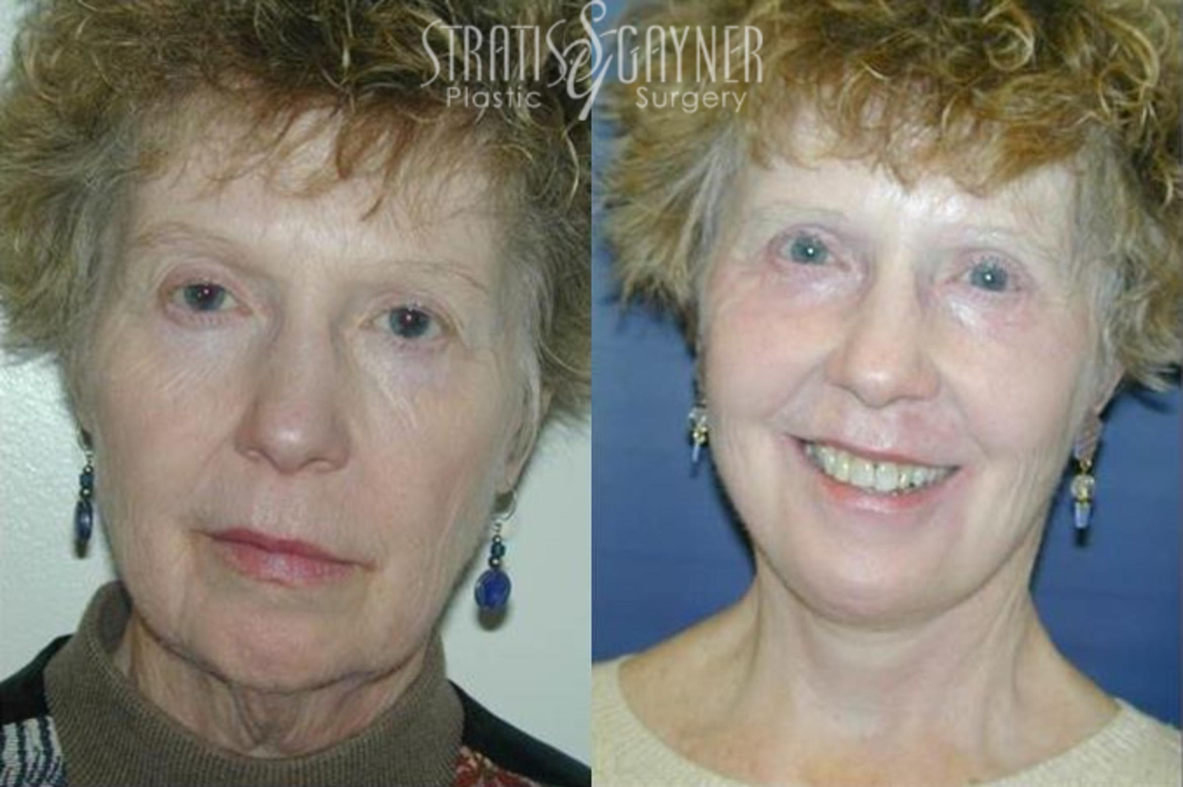 Quick Recovery Facelift Case 199 Before & After View #1 | Harrisburg, PA | Stratis Gayner Plastic Surgery
