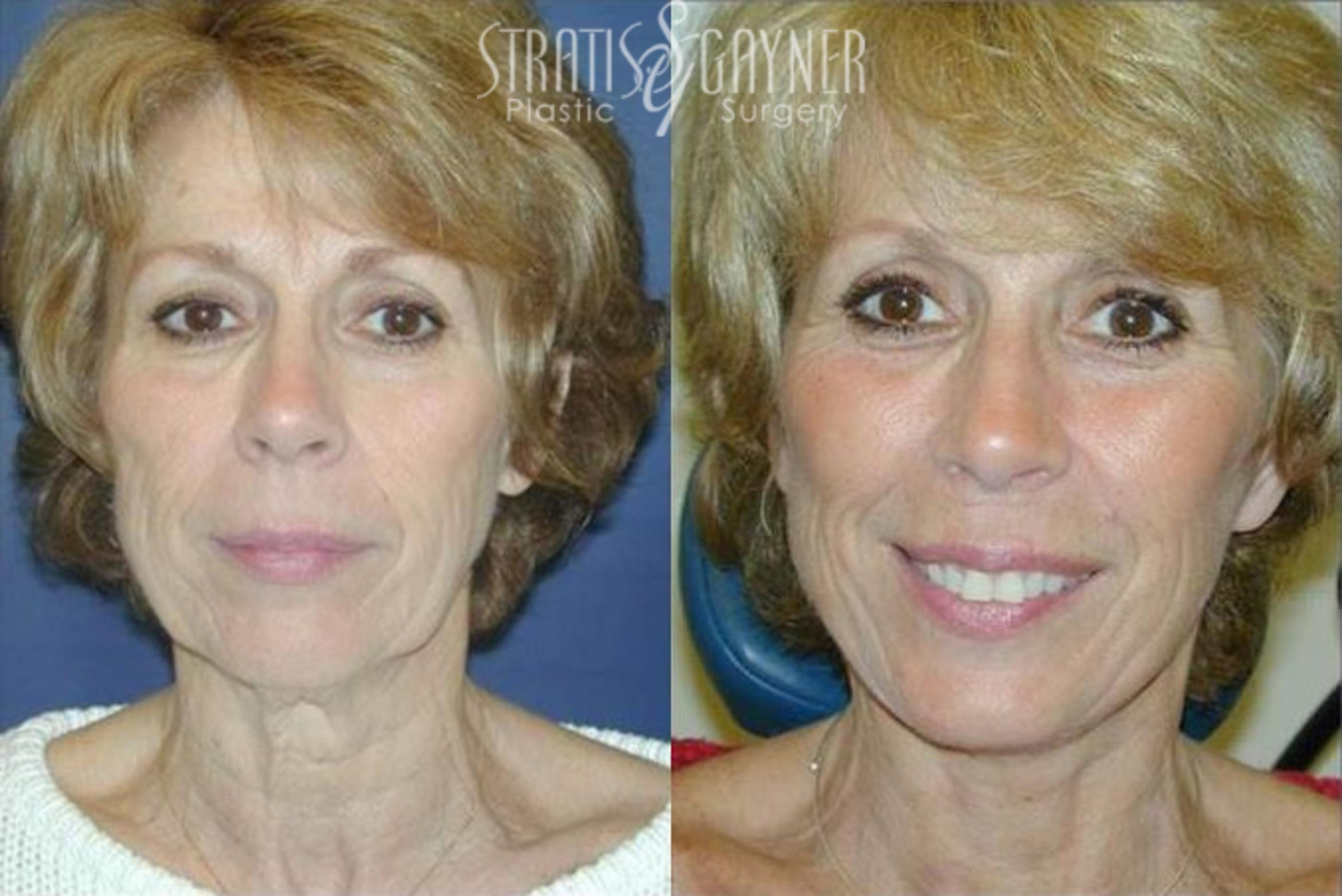 Quick Recovery Facelift Case 200 Before & After View #1 | Harrisburg, PA | Stratis Gayner Plastic Surgery