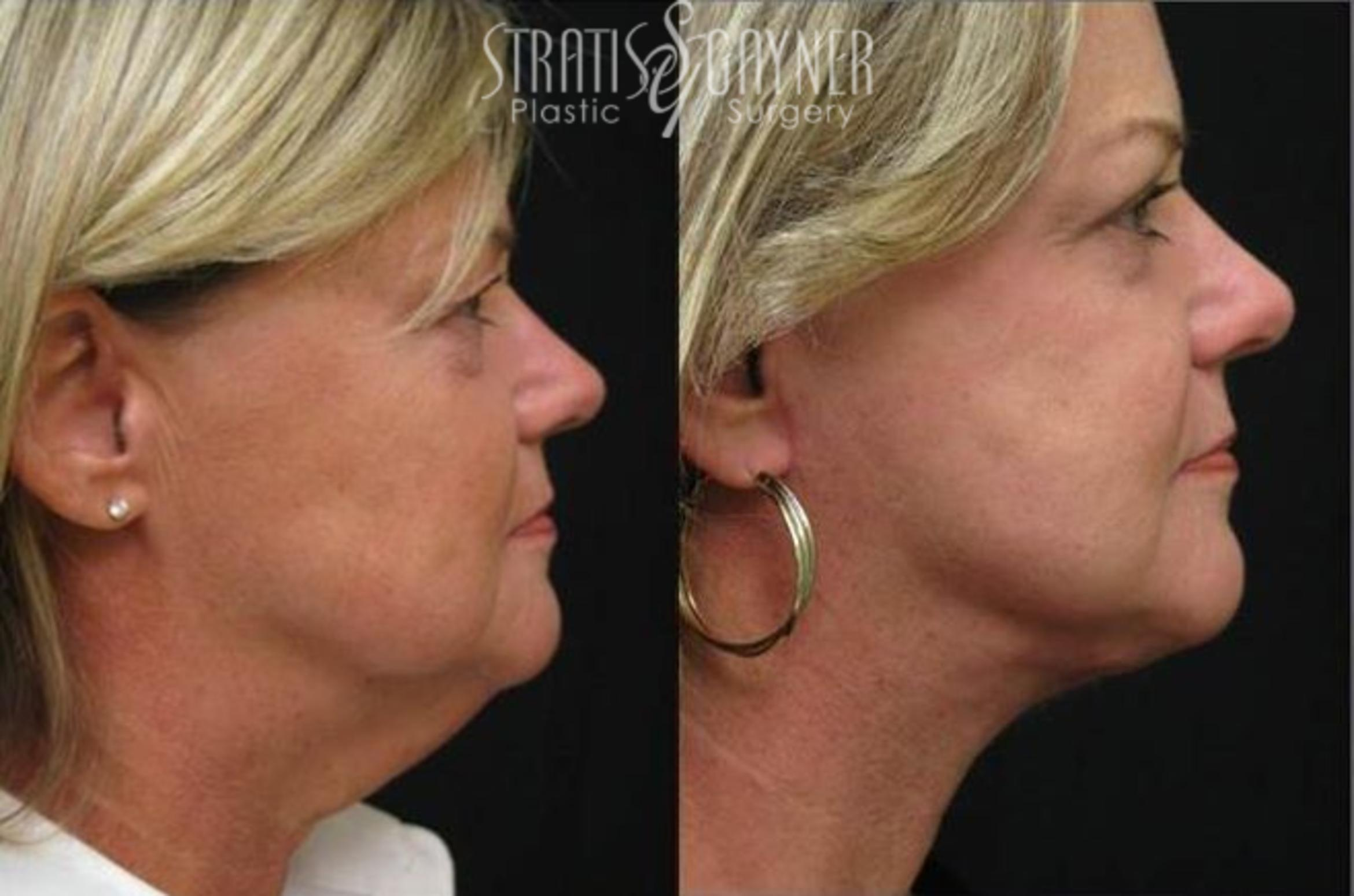 Quick Recovery Facelift Case 204 Before & After View #1 | Harrisburg, PA | Stratis Gayner Plastic Surgery