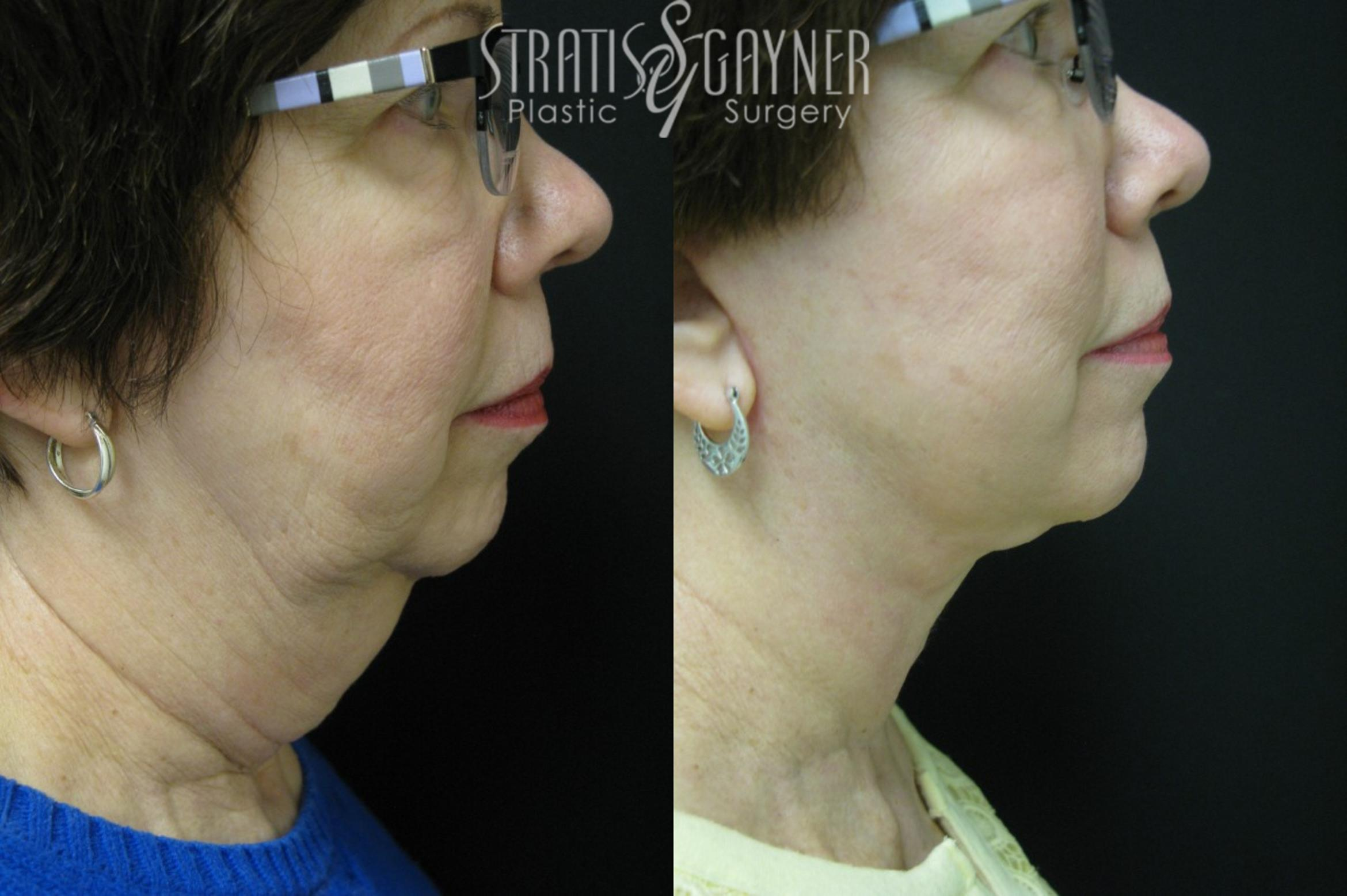 Quick Recovery Facelift Case 33 Before & After View #1 | Harrisburg, PA | Stratis Gayner Plastic Surgery