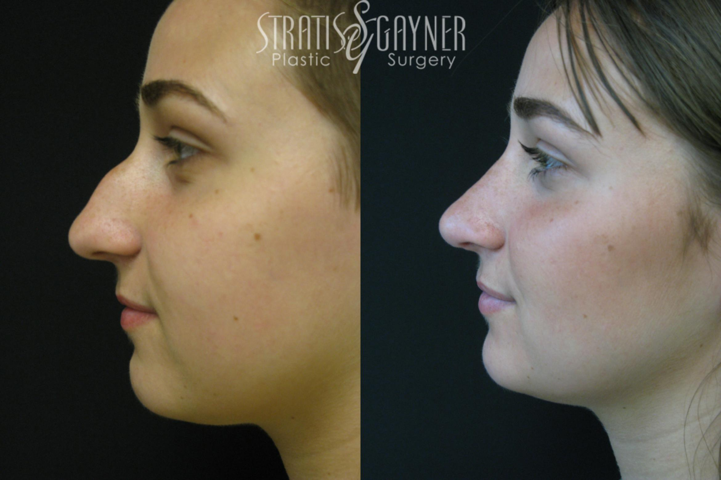 Rhinoplasty Case 208 Before & After View #1 | Harrisburg, PA | Stratis Gayner Plastic Surgery