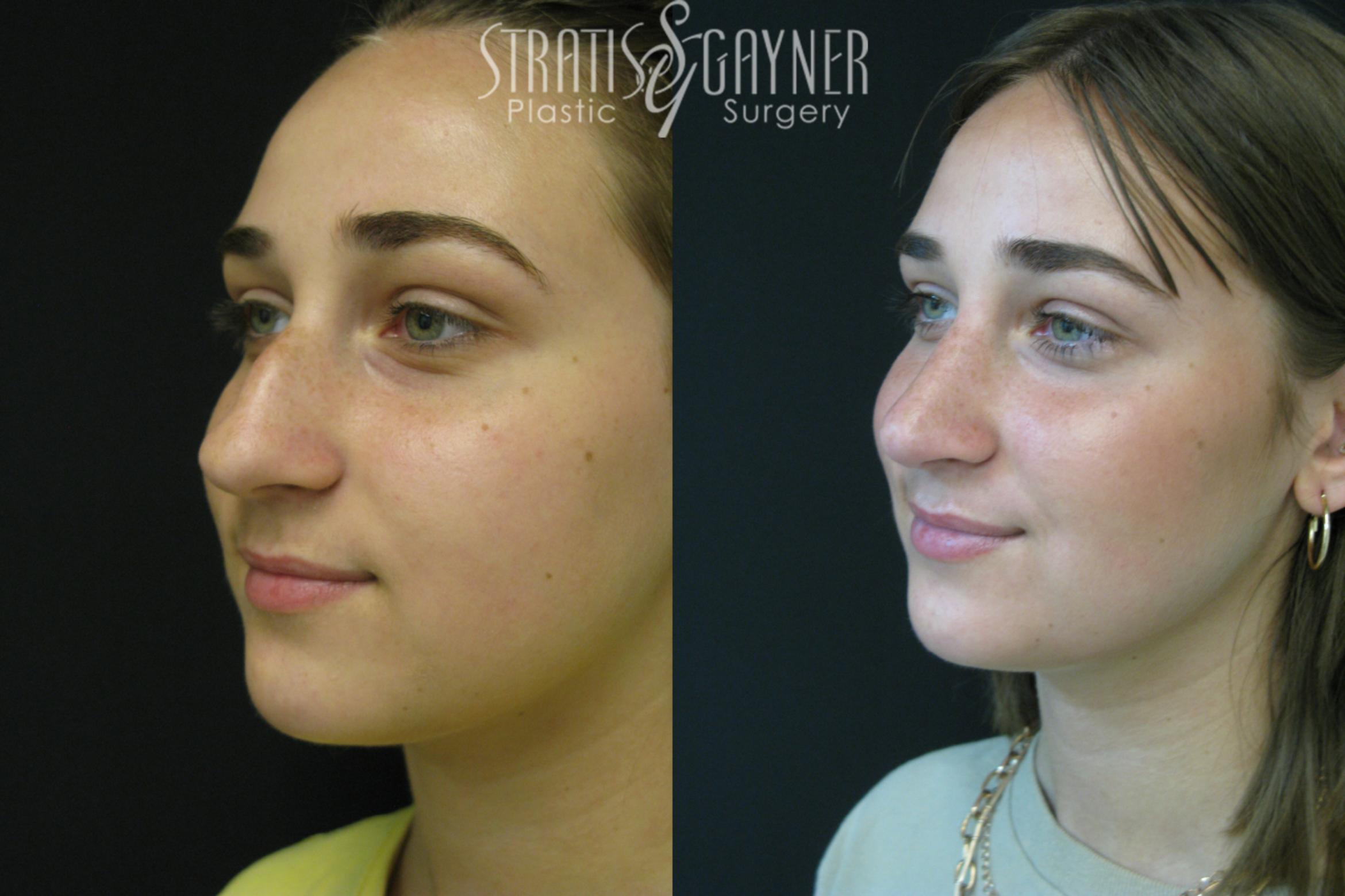 Rhinoplasty Case 208 Before & After View #2 | Harrisburg, PA | Stratis Gayner Plastic Surgery