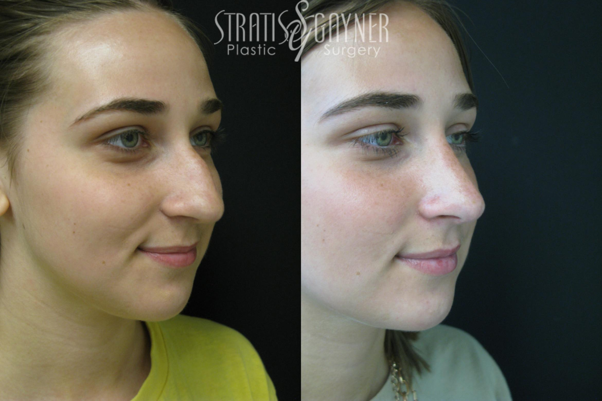Rhinoplasty Case 208 Before & After View #4 | Harrisburg, PA | Stratis Gayner Plastic Surgery