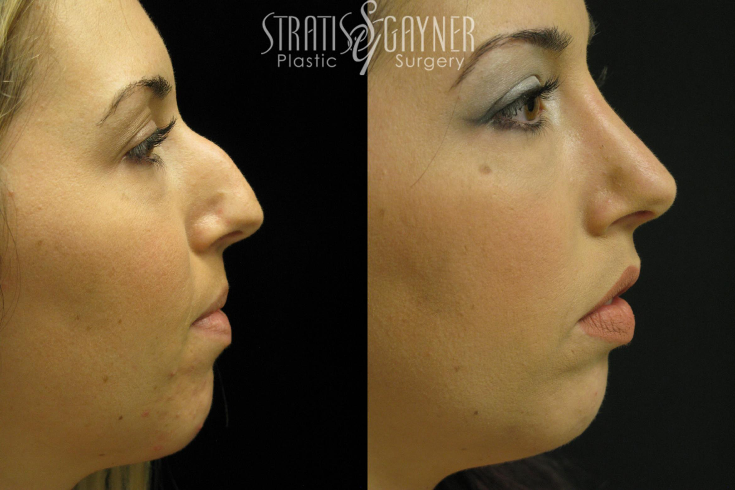 Rhinoplasty Case 37 Before & After View #1 | Harrisburg, PA | Stratis Gayner Plastic Surgery