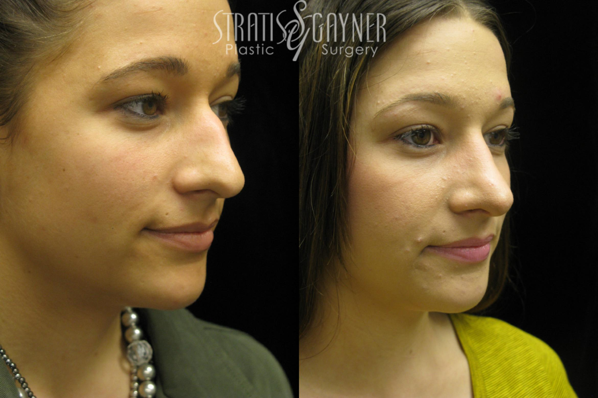 Rhinoplasty Case 38 Before & After View #1 | Harrisburg, PA | Stratis Gayner Plastic Surgery