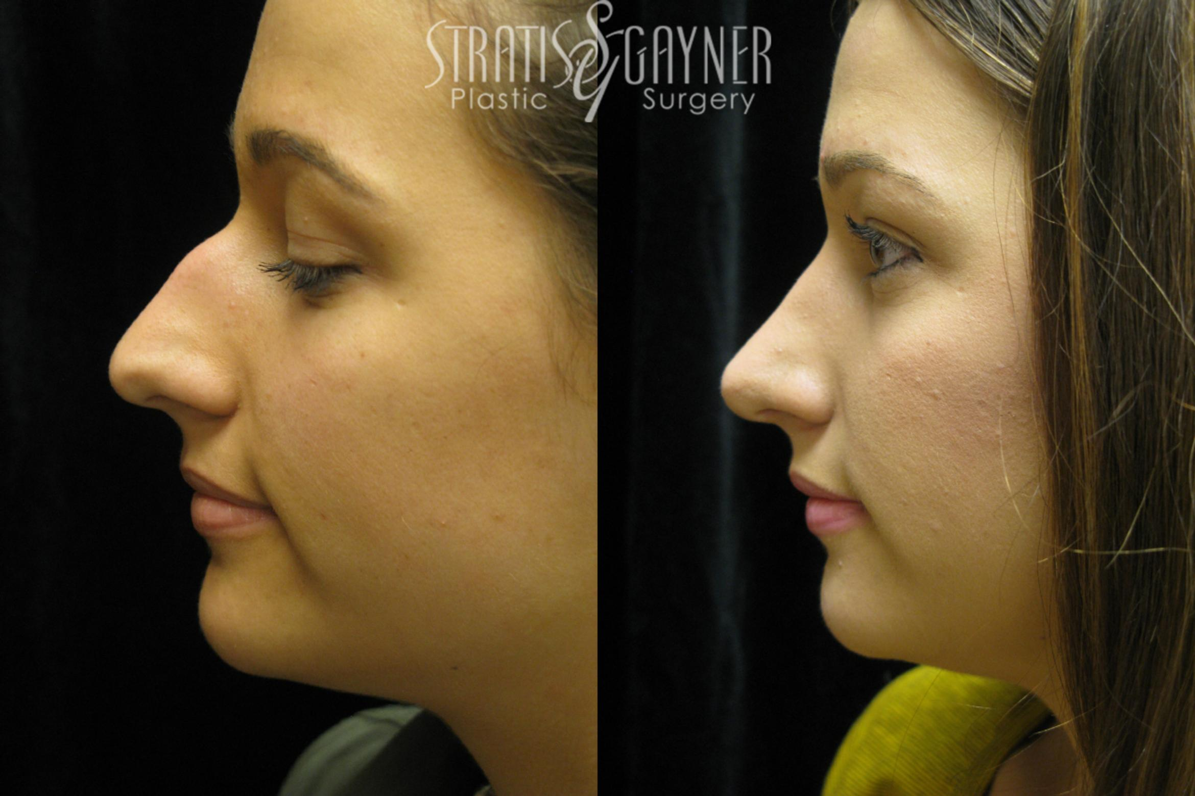 Rhinoplasty Case 38 Before & After View #3 | Harrisburg, PA | Stratis Gayner Plastic Surgery