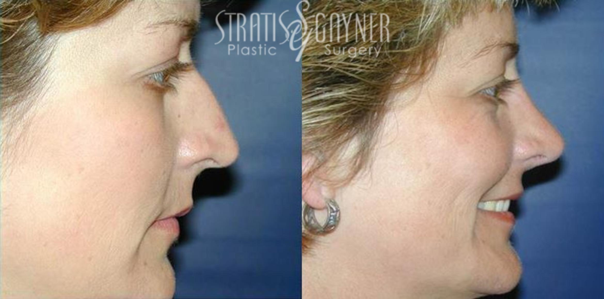Rhinoplasty Case 62 Before & After View #1 | Harrisburg, PA | Stratis Gayner Plastic Surgery