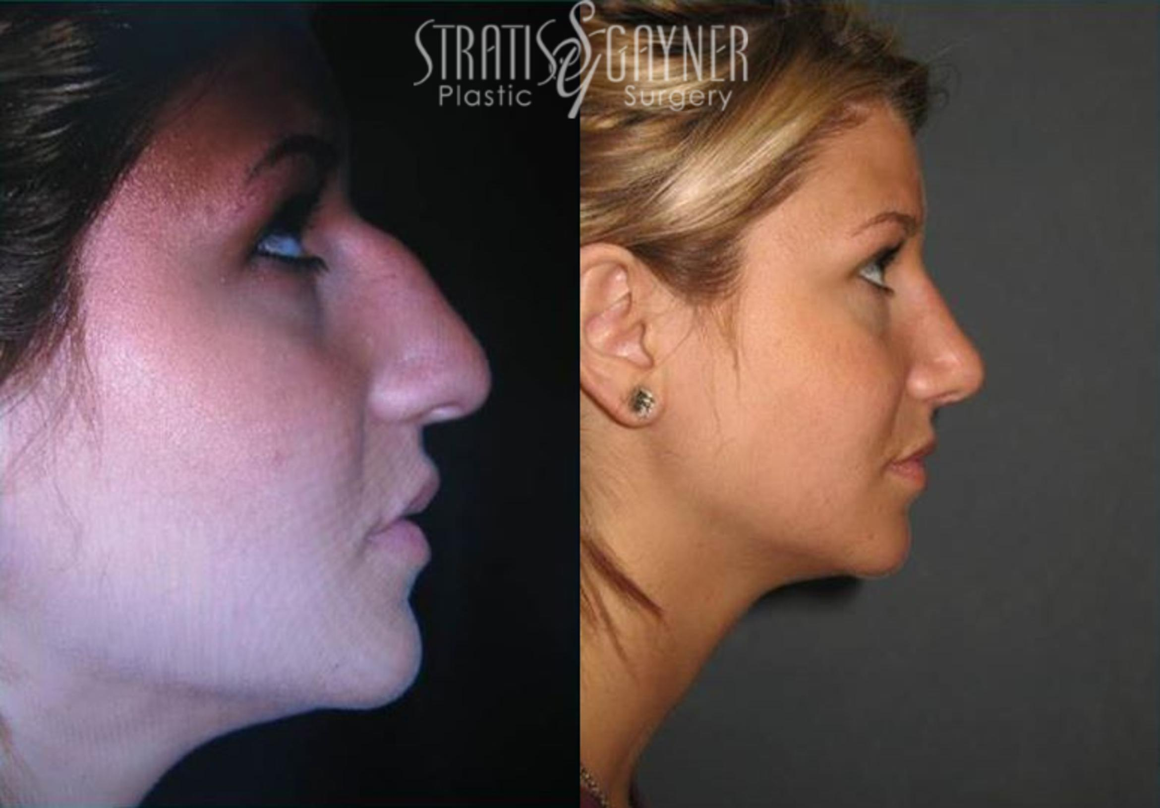 Rhinoplasty Case 70 Before & After View #1 | Harrisburg, PA | Stratis Gayner Plastic Surgery