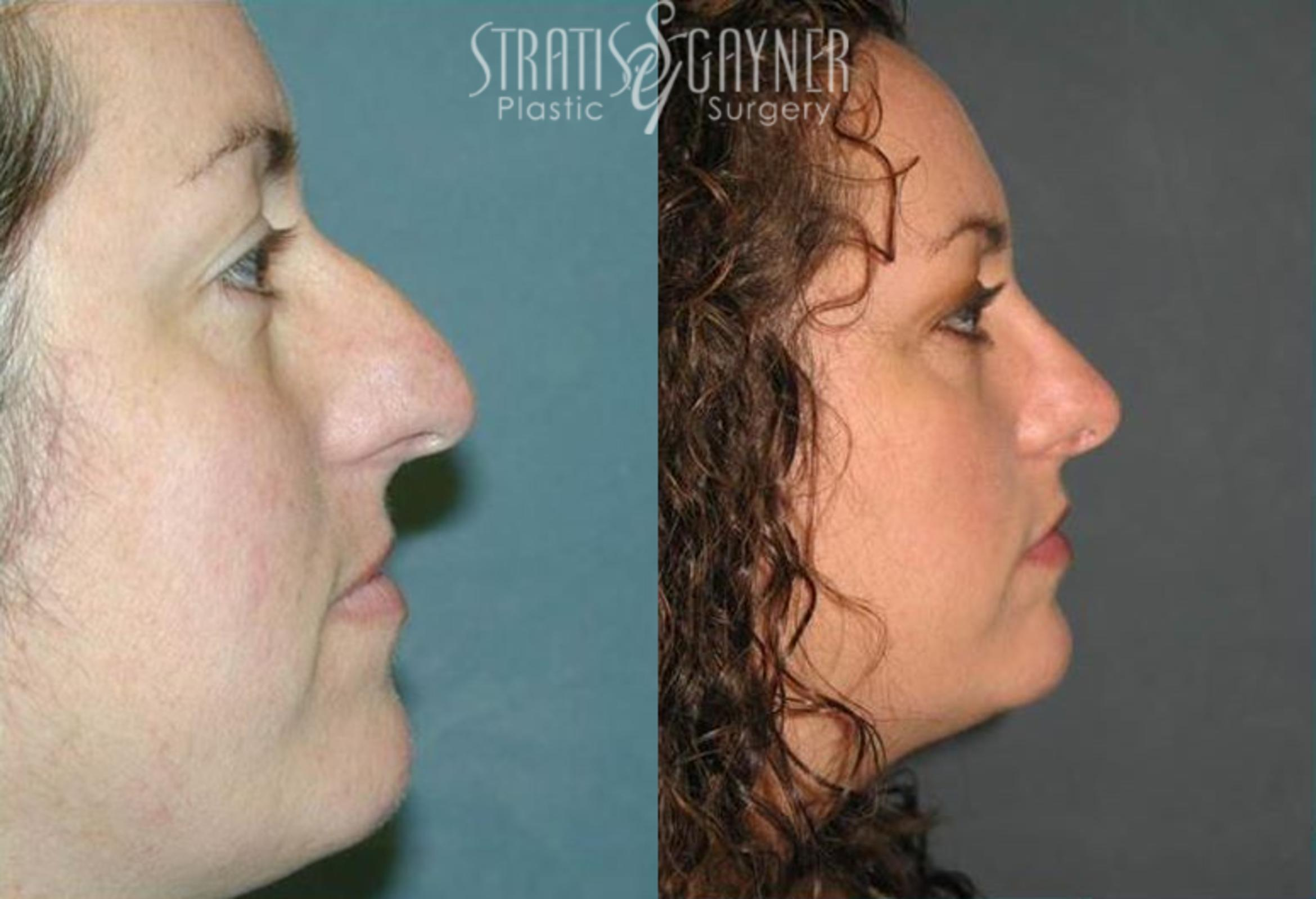 Rhinoplasty Case 72 Before & After View #1 | Harrisburg, PA | Stratis Gayner Plastic Surgery
