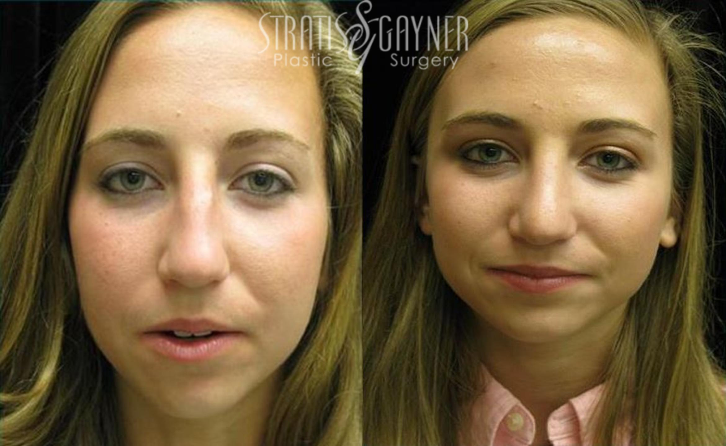Rhinoplasty Case 74 Before & After View #3 | Harrisburg, PA | Stratis Gayner Plastic Surgery