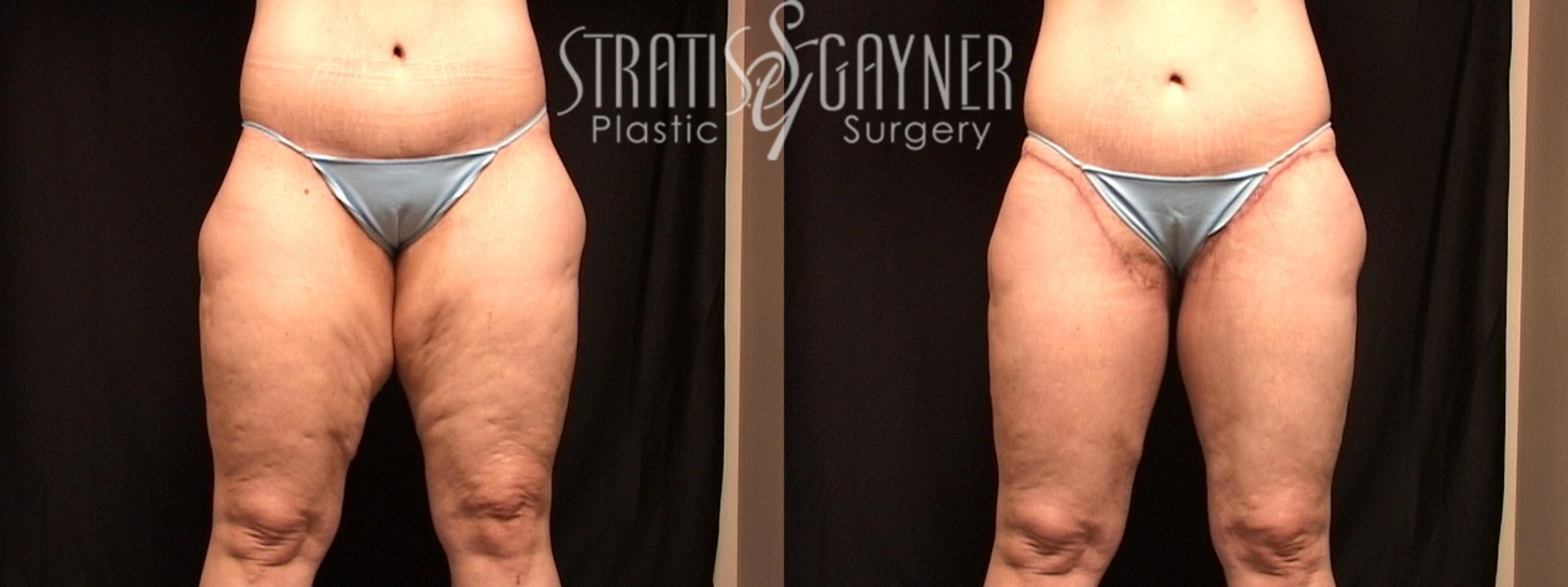 Thigh Lift Case 132 Before & After View #1 | Harrisburg, PA | Stratis Gayner Plastic Surgery