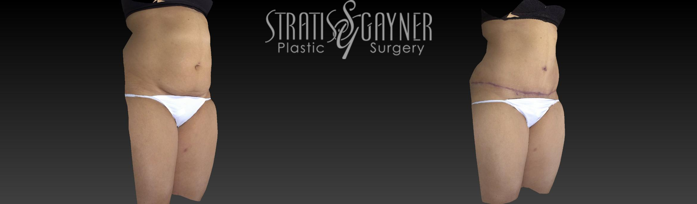 Tummy Tuck Case 17 Before & After View #2 | Harrisburg, PA | Stratis Gayner Plastic Surgery