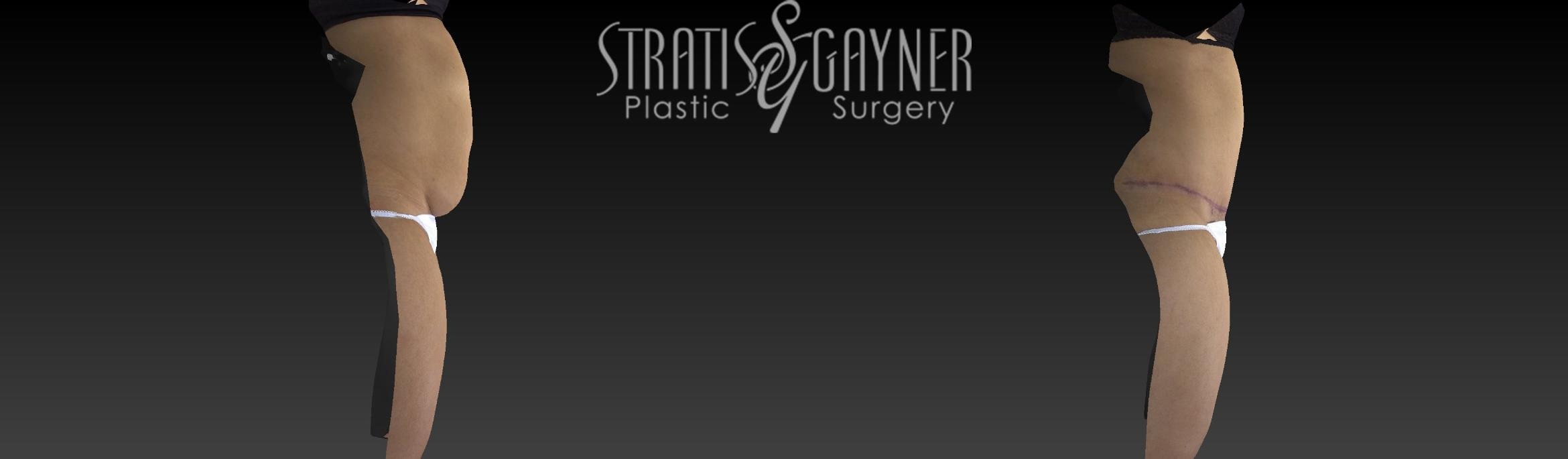 Tummy Tuck Case 17 Before & After View #3 | Harrisburg, PA | Stratis Gayner Plastic Surgery