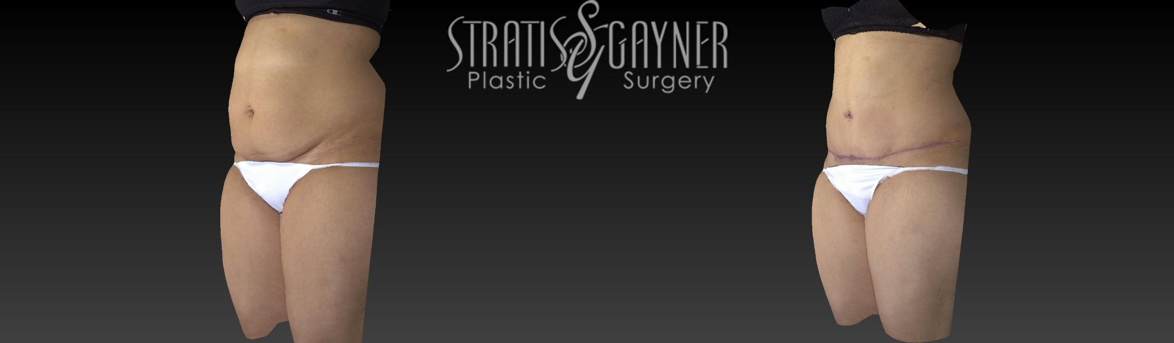 Tummy Tuck Case 17 Before & After View #4 | Harrisburg, PA | Stratis Gayner Plastic Surgery