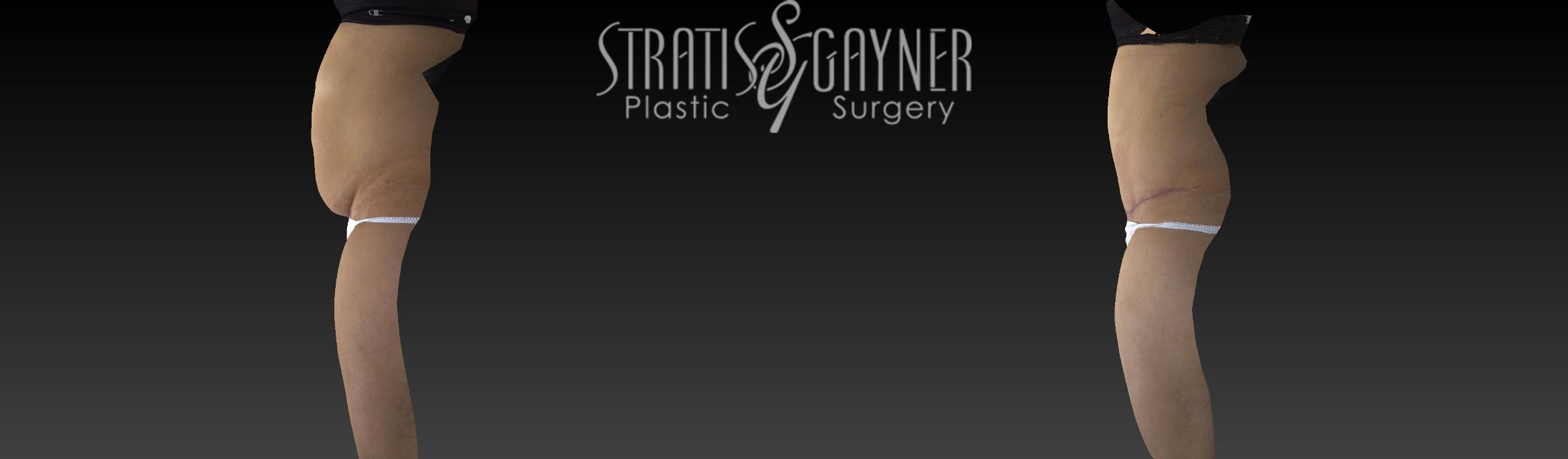 Tummy Tuck Case 17 Before & After View #5 | Harrisburg, PA | Stratis Gayner Plastic Surgery