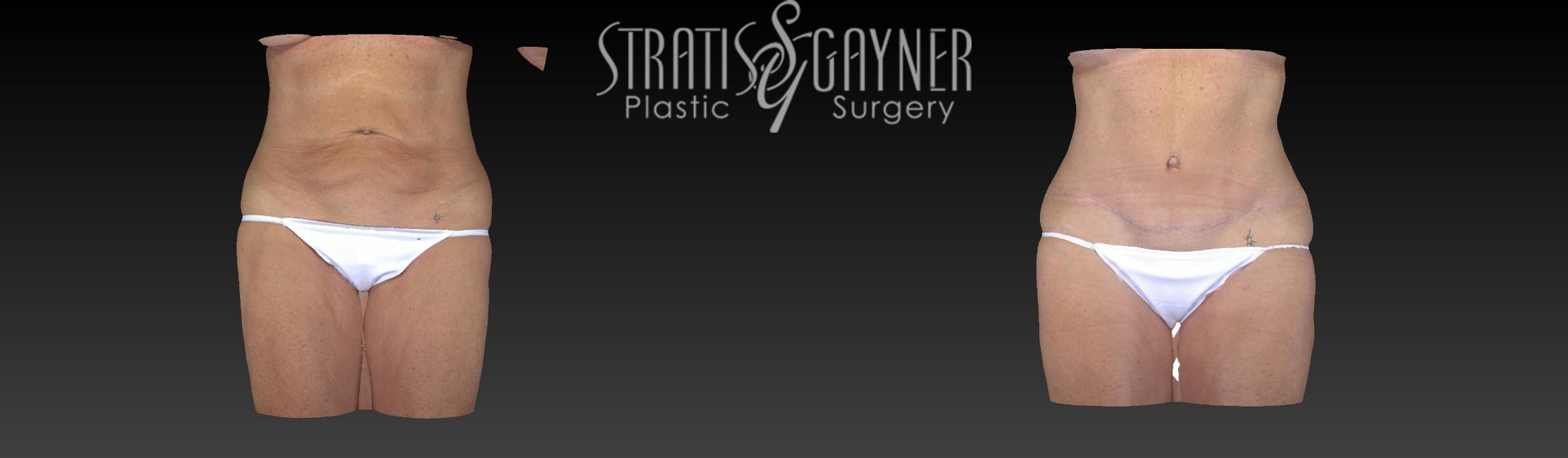Tummy Tuck Case 194 Before & After View #1 | Harrisburg, PA | Stratis Gayner Plastic Surgery